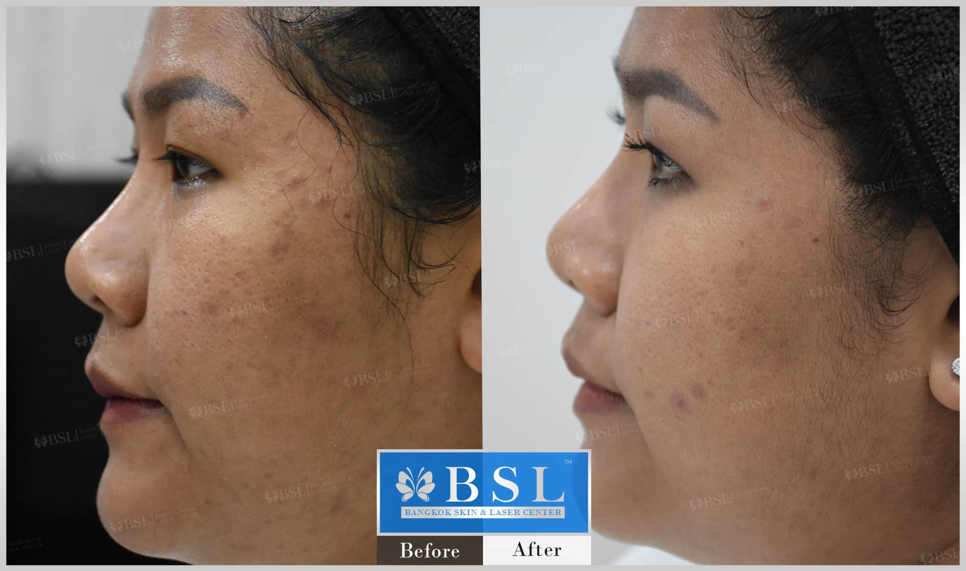 before-after-results-acne-124