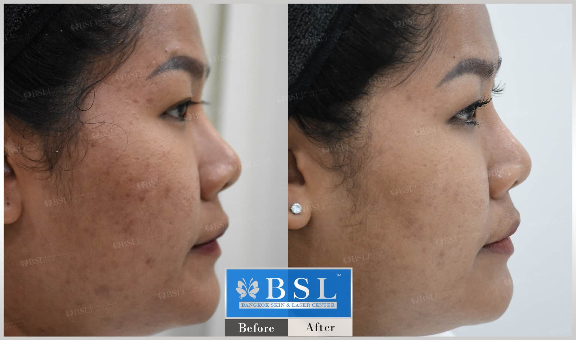 before-after-results-acne-125