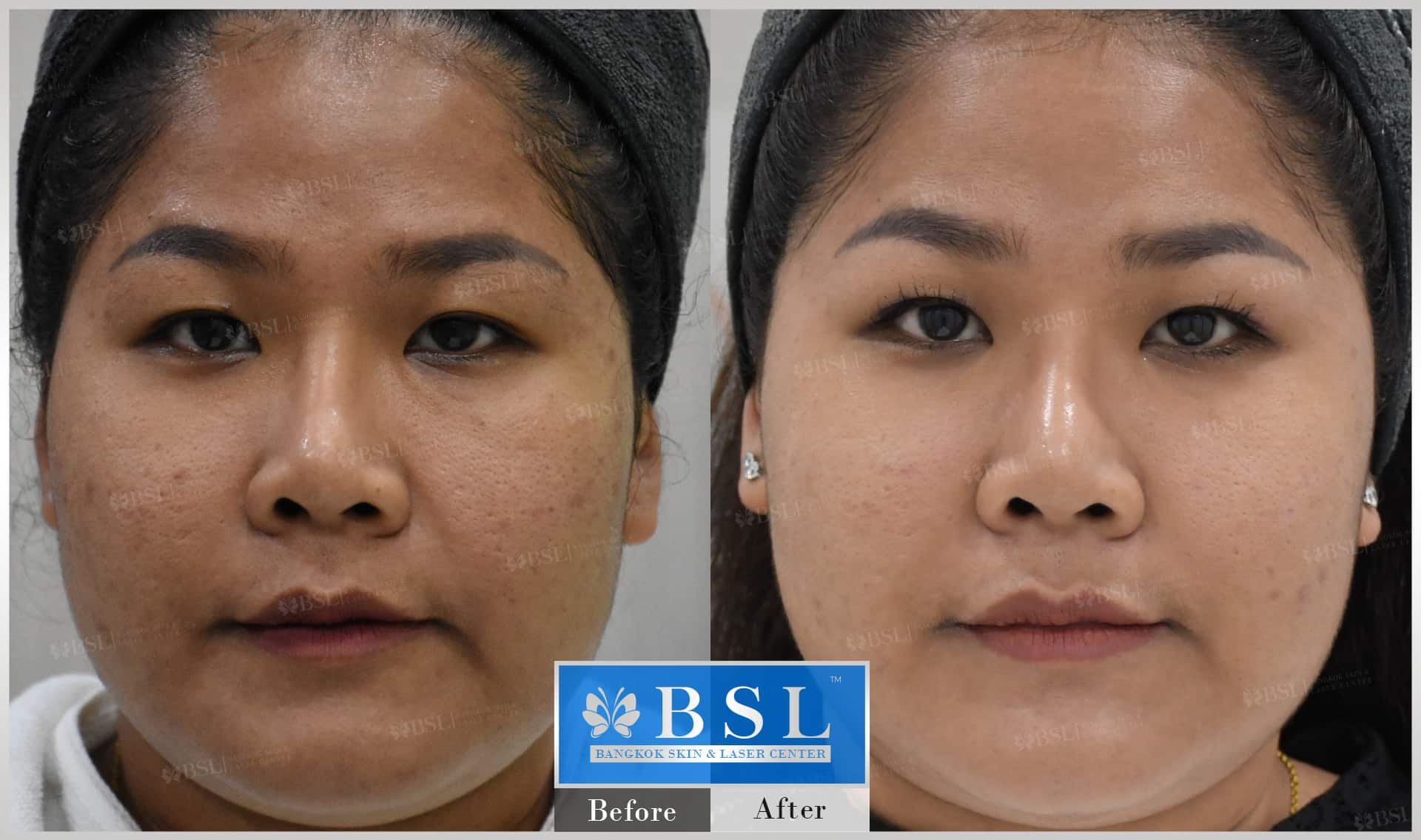 before-after-results-acne-126