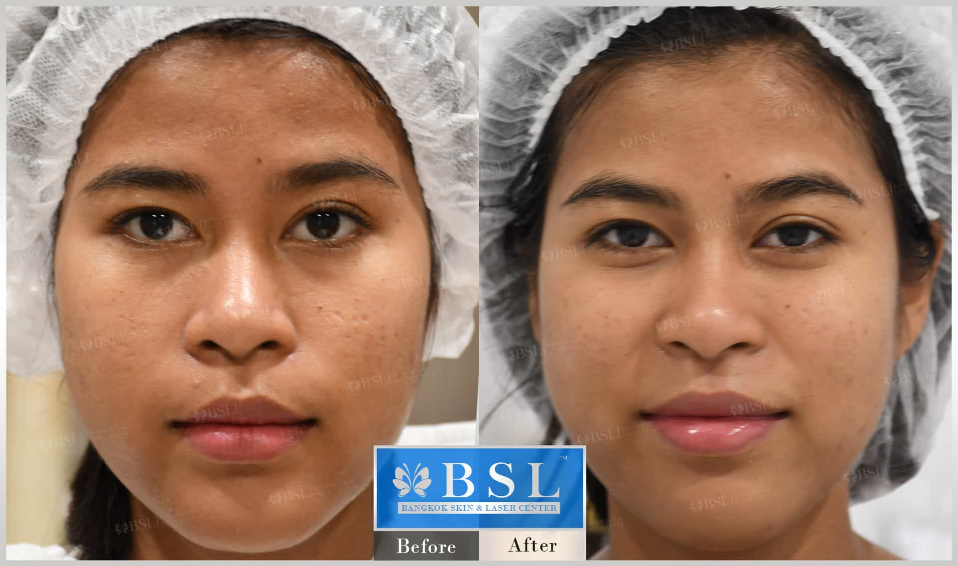 before-after-results-acne-129