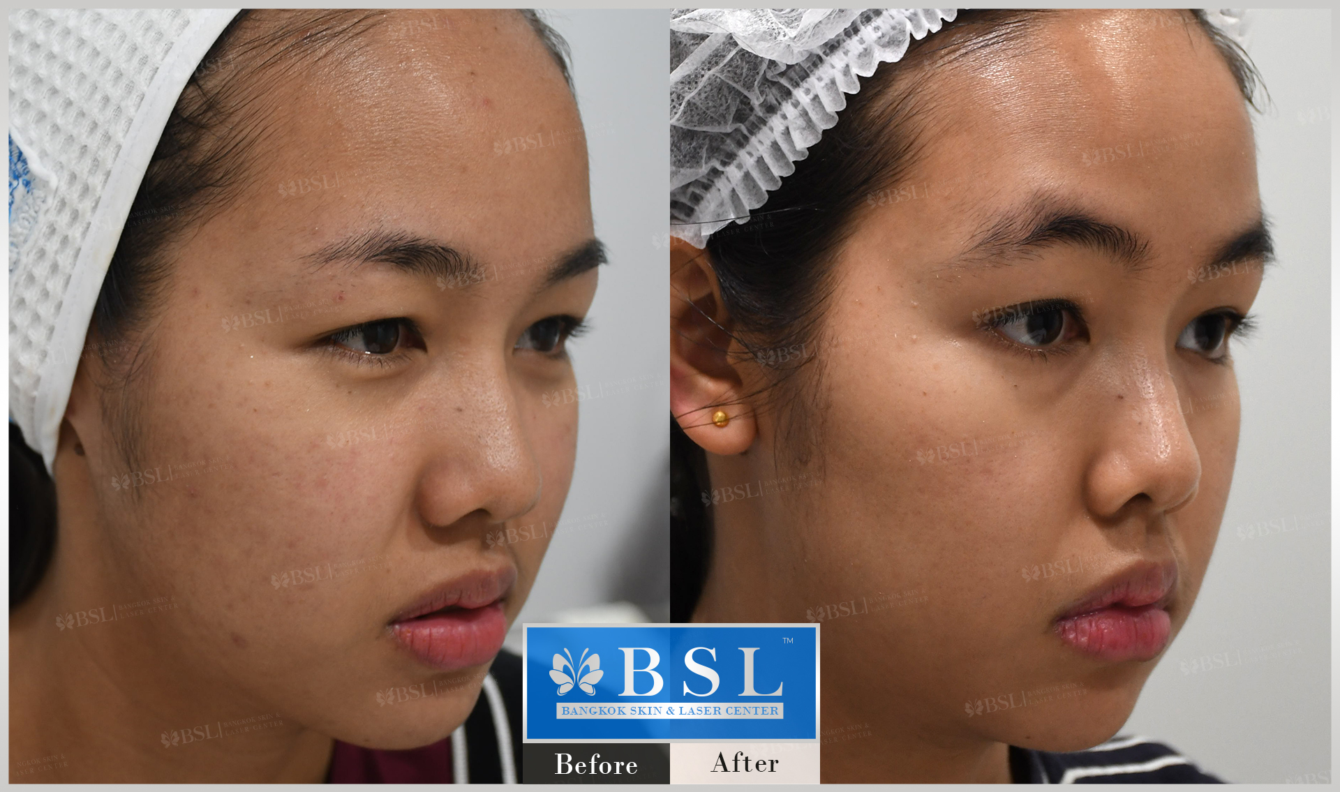 before-after-results-acne-131