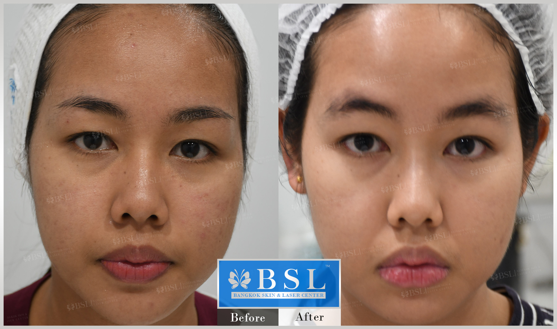 before-after-results-acne-132
