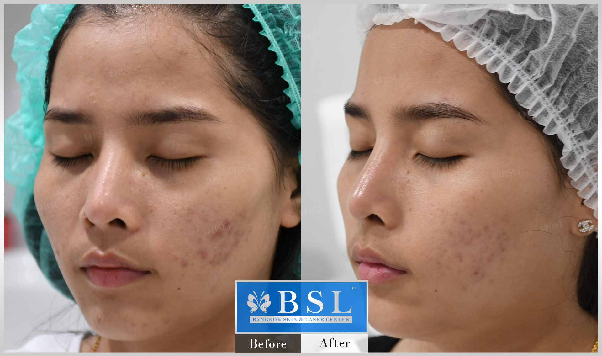 before-after-results-acne-133
