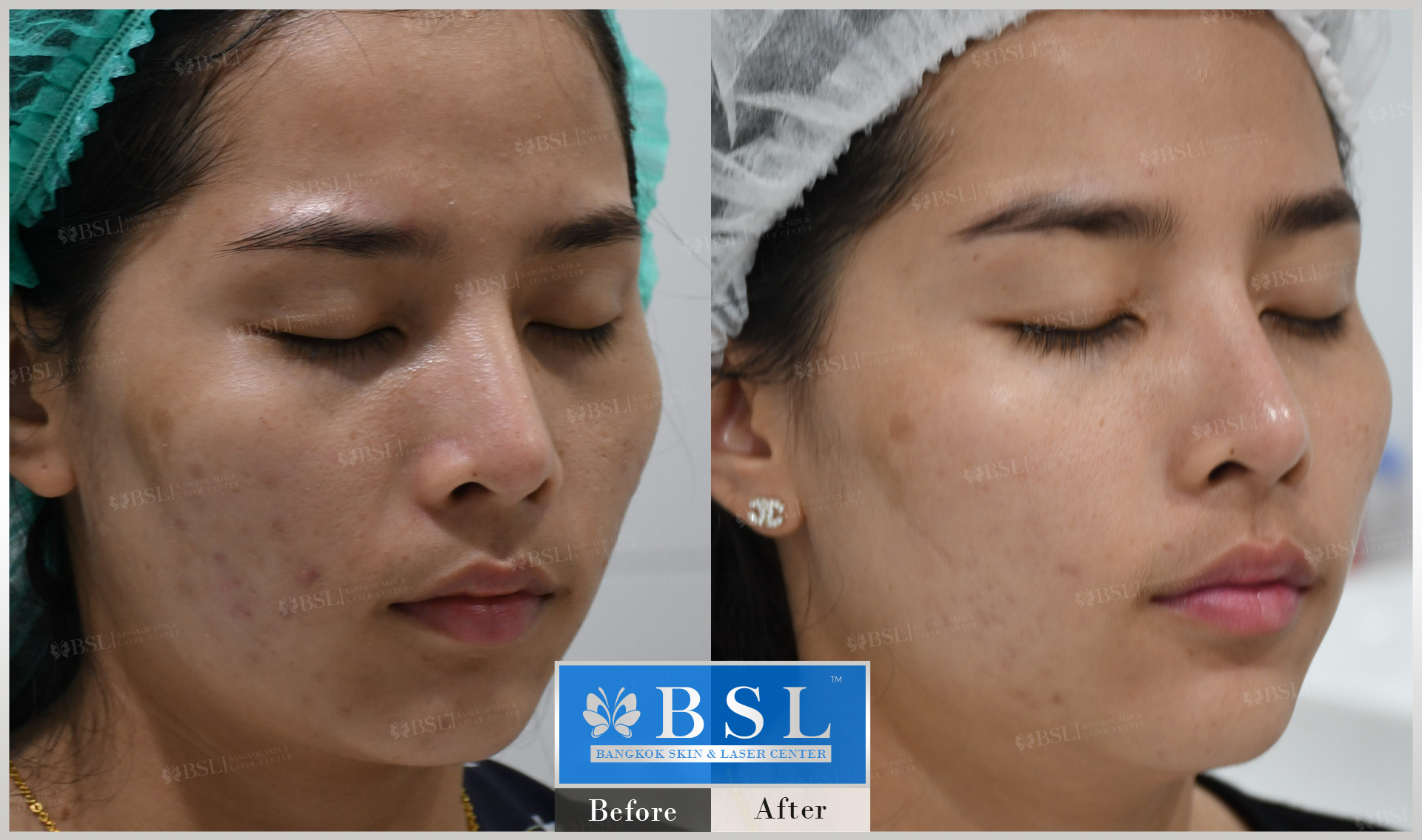 before-after-results-acne-134
