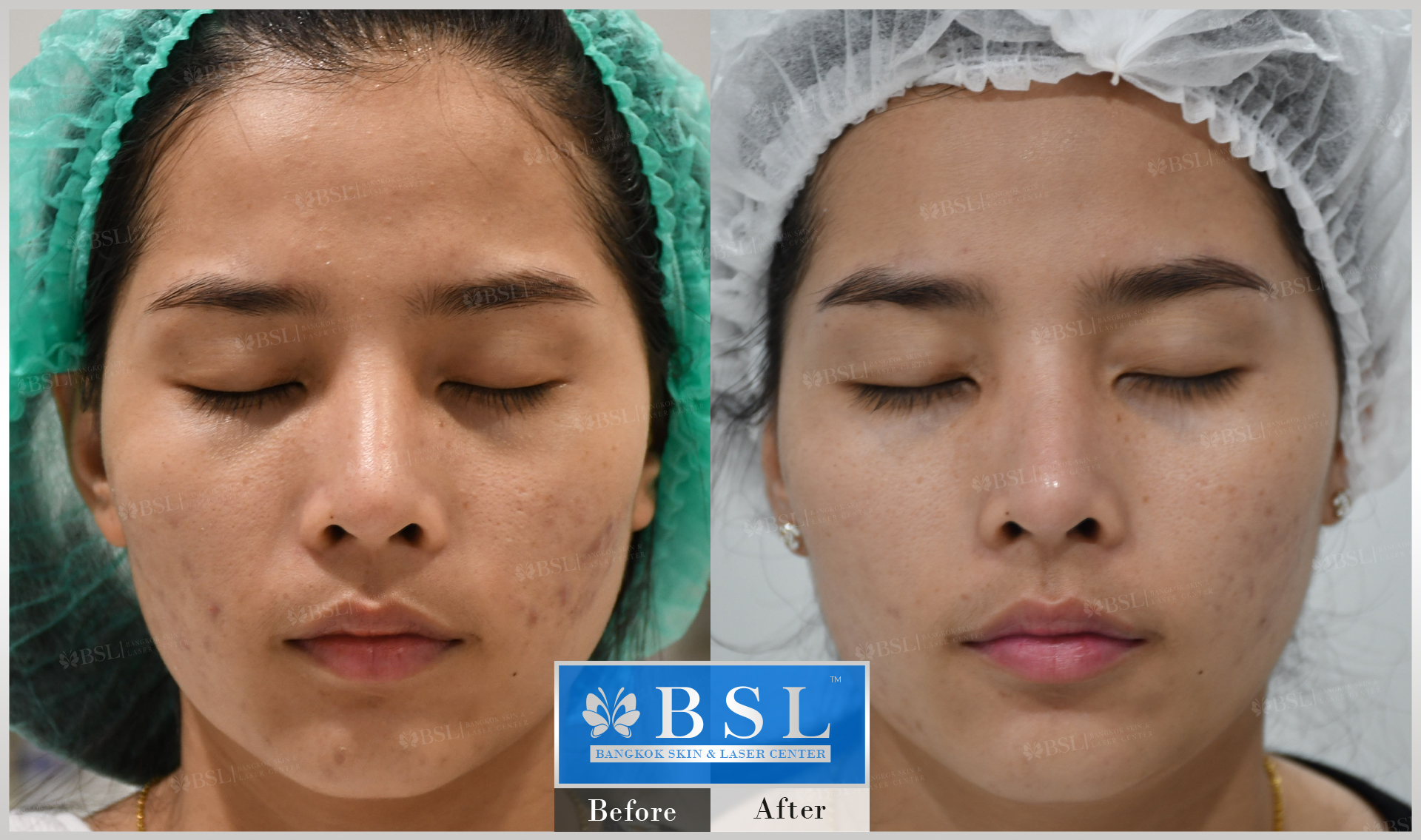 before-after-results-acne-135