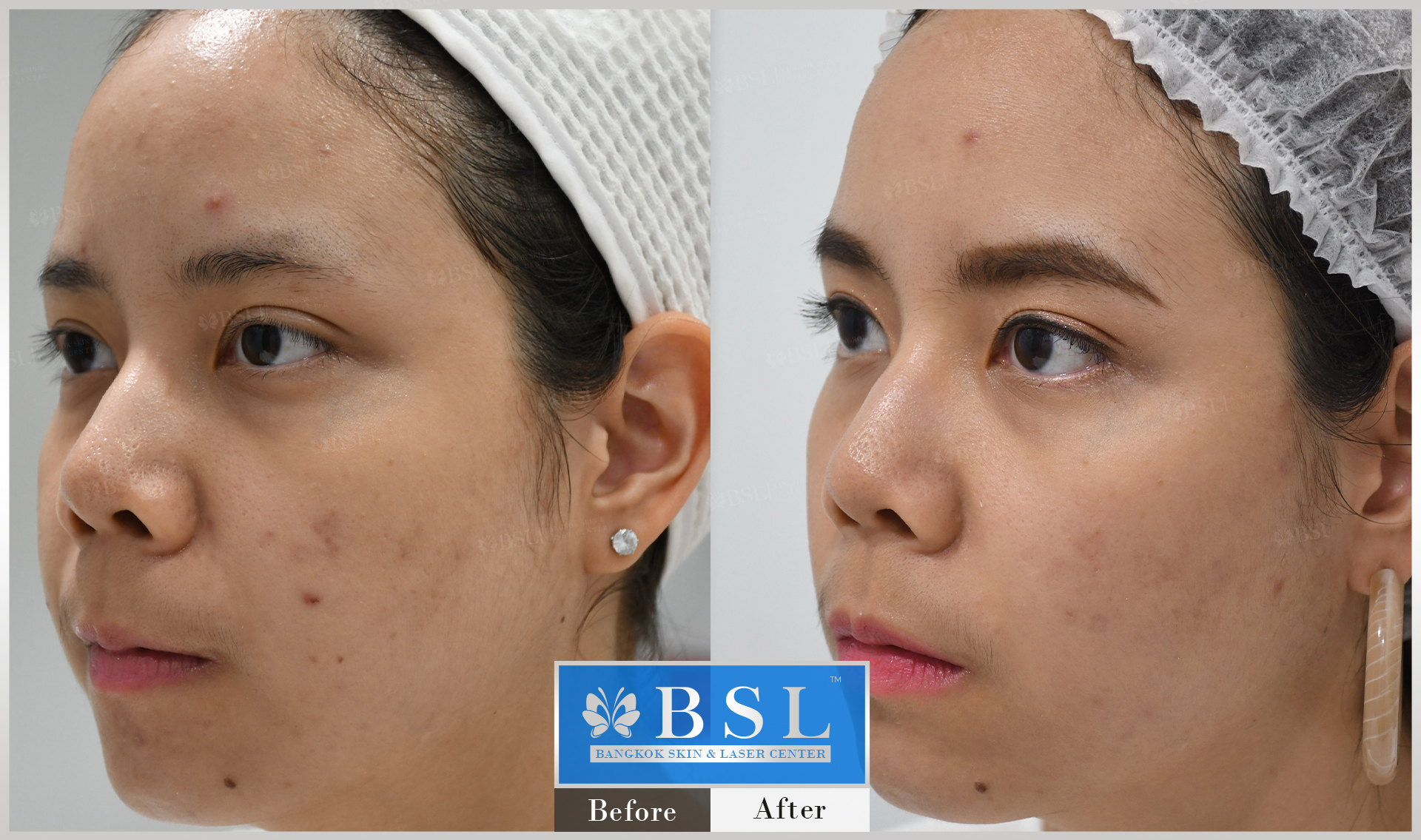 before-after-results-acne-136