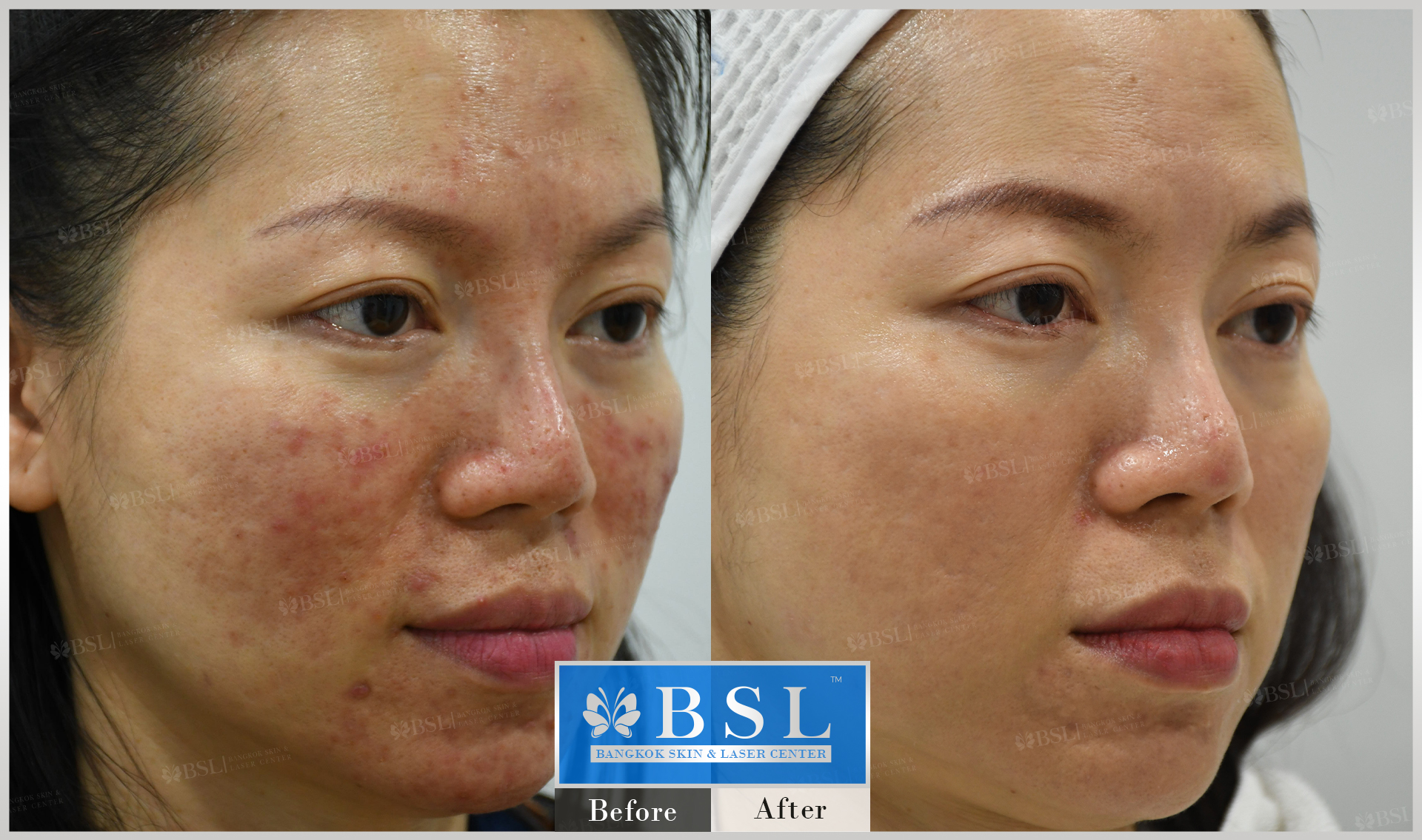 before-after-results-acne-140
