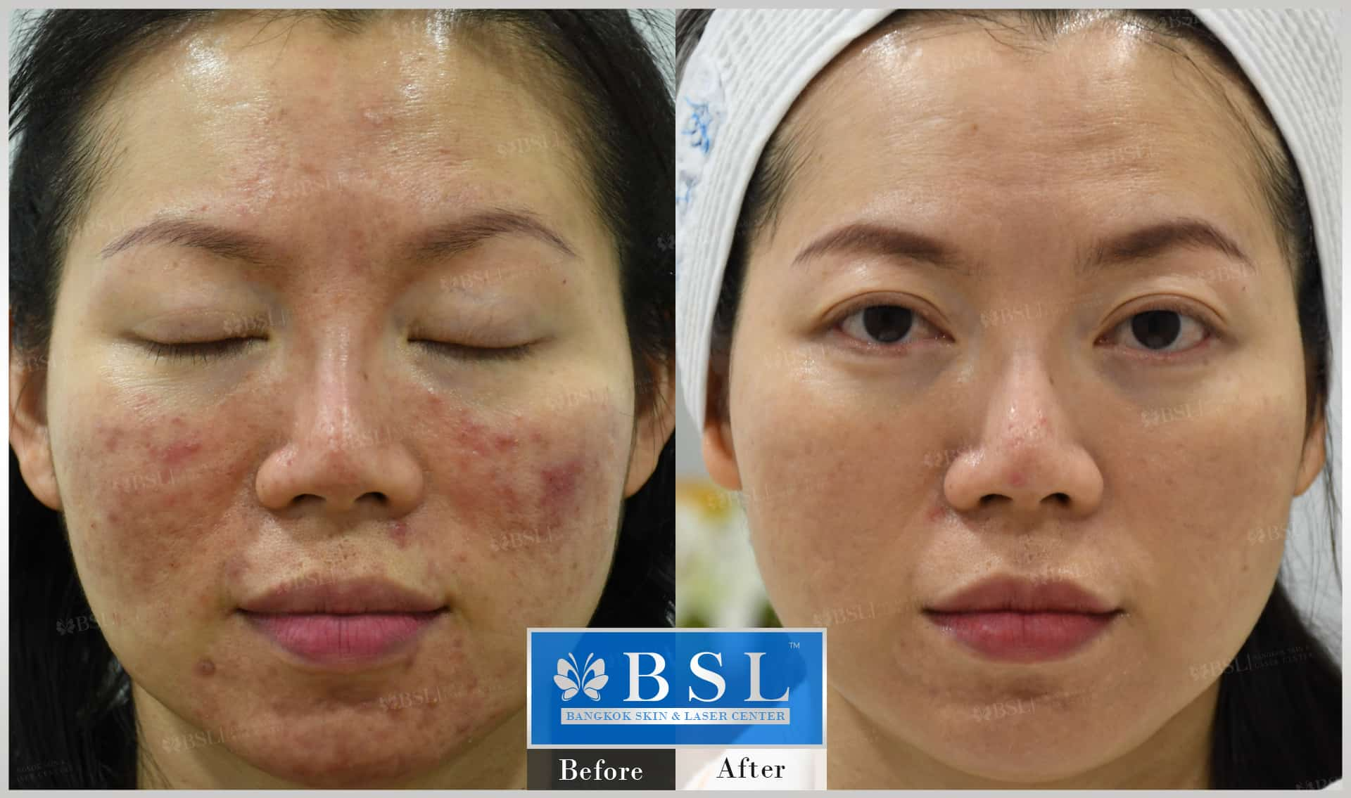 before-after-results-acne-141