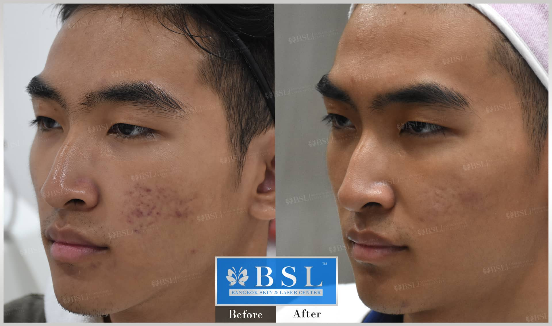 before-after-results-acne-142