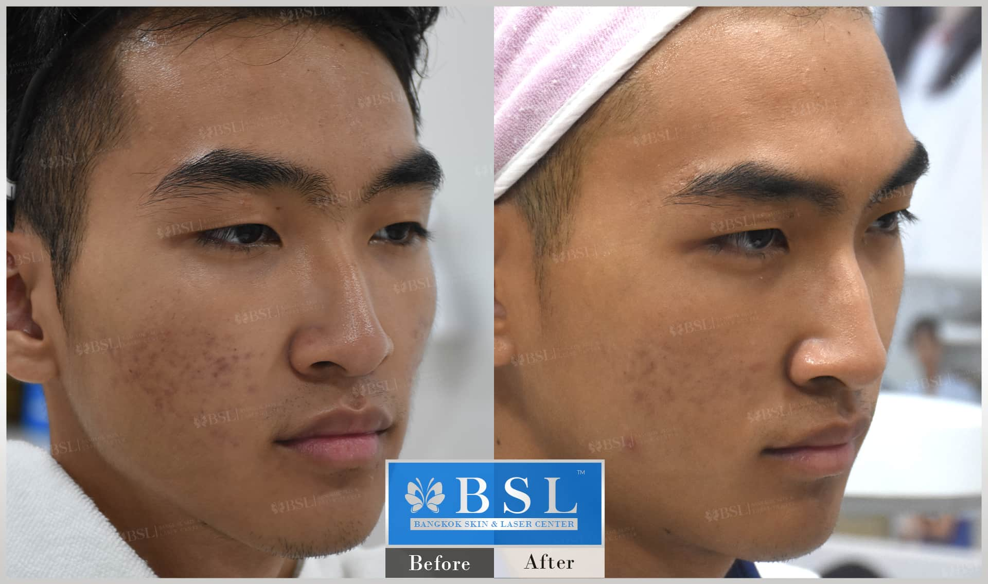 before-after-results-acne-143
