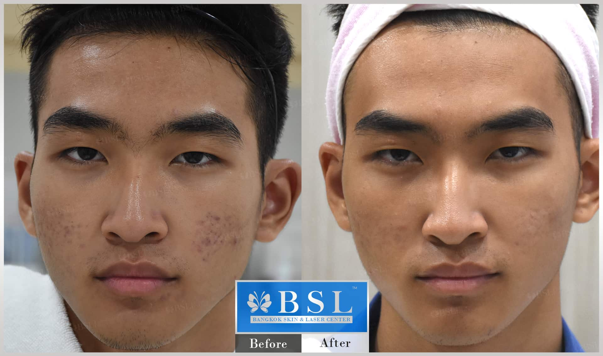 before-after-results-acne-144