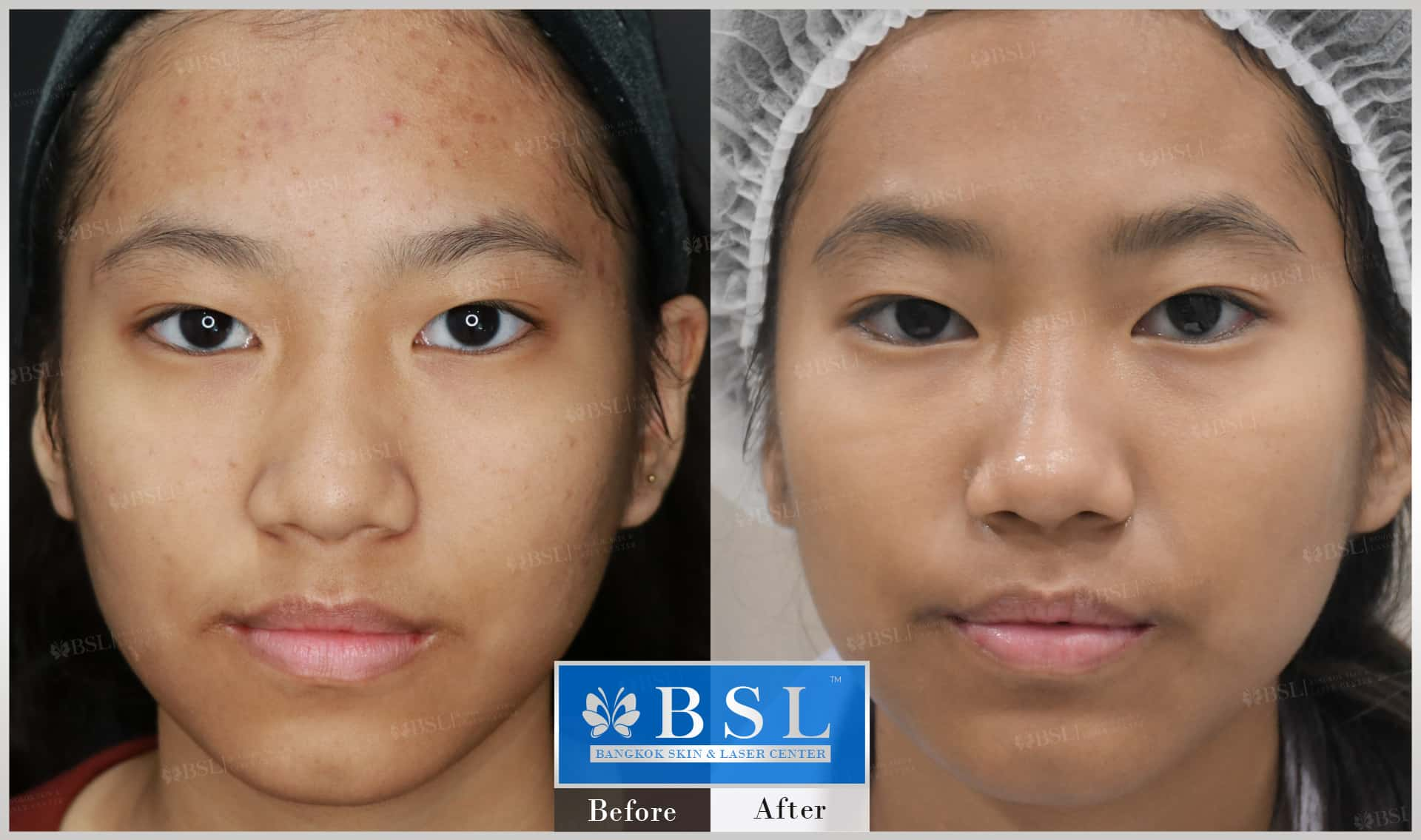 before-after-results-acne-147