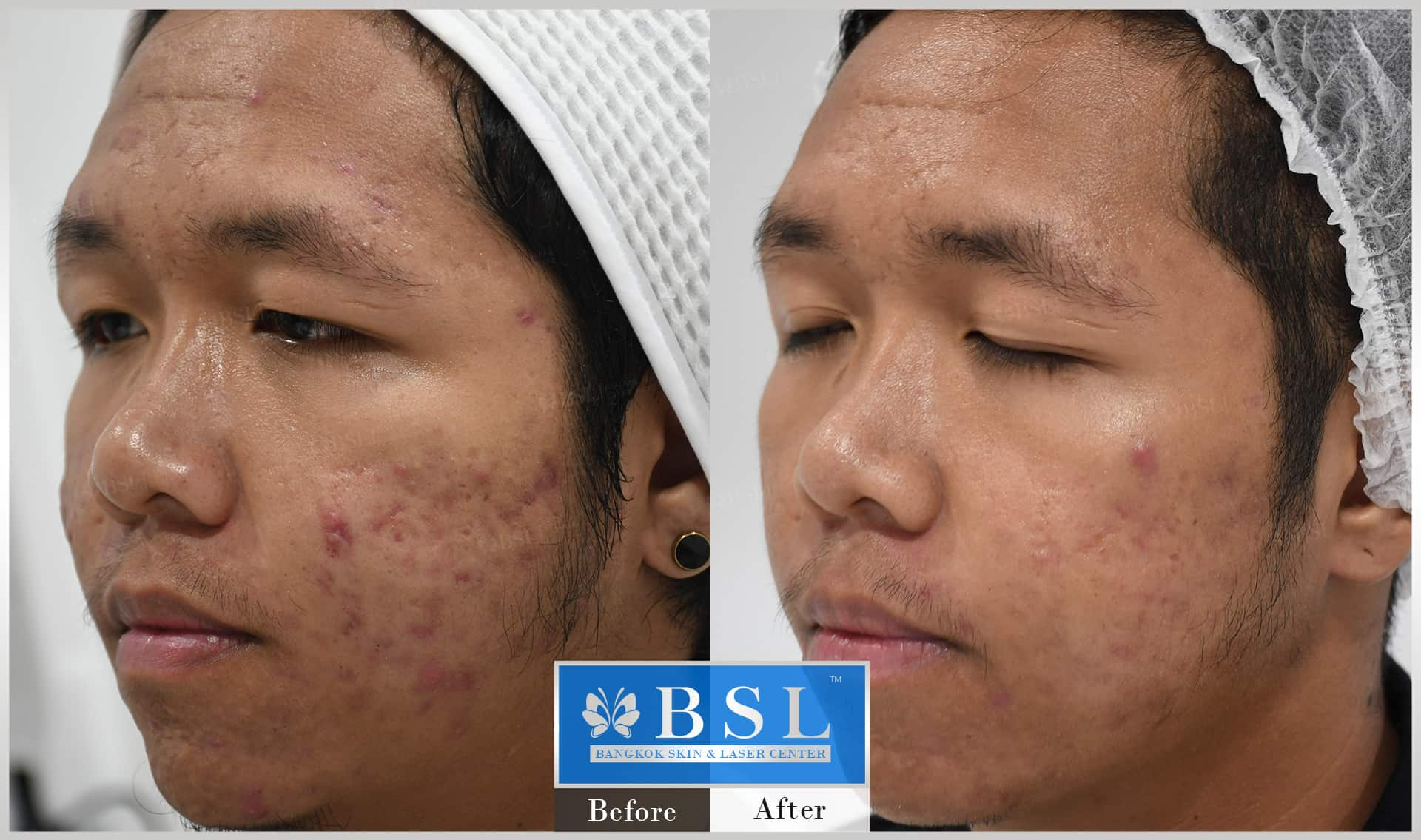 before-after-results-acne-148