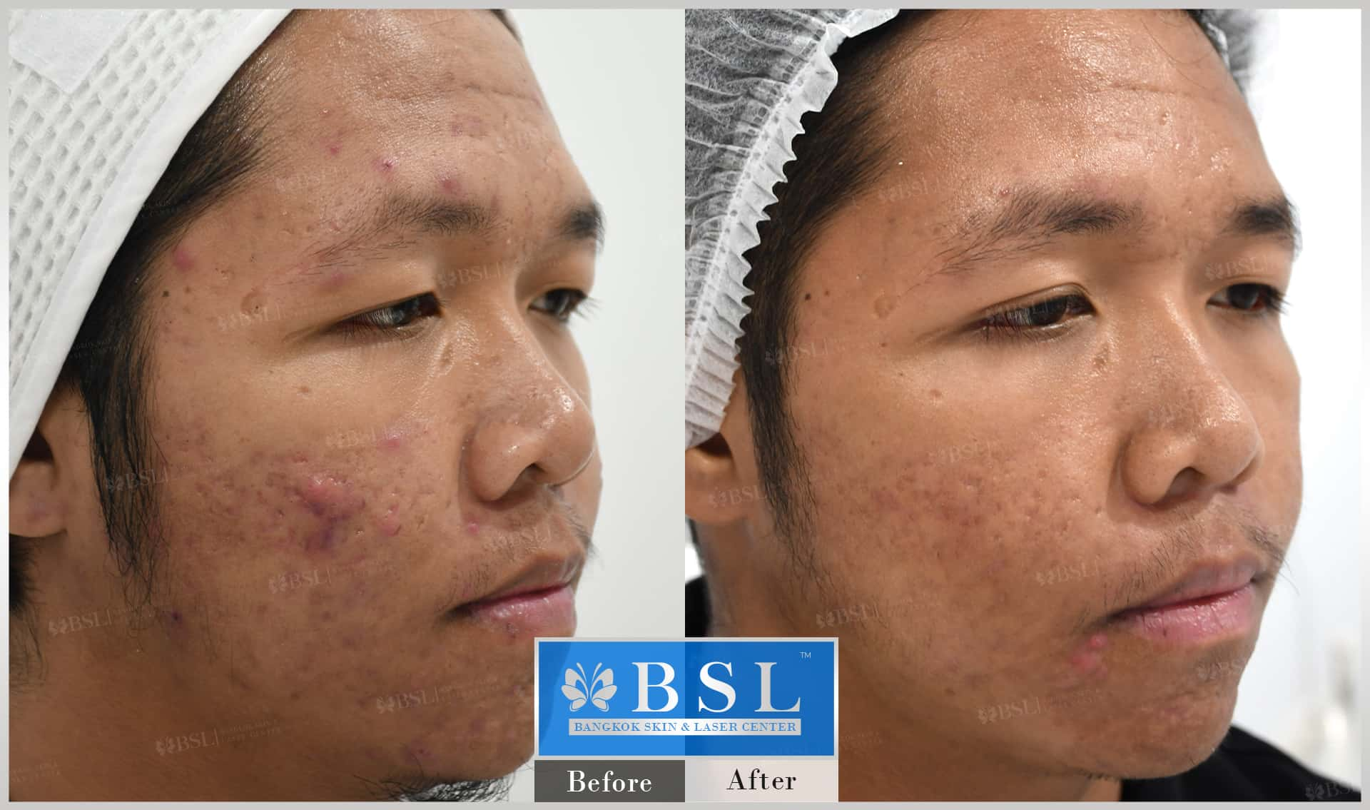 before-after-results-acne-149