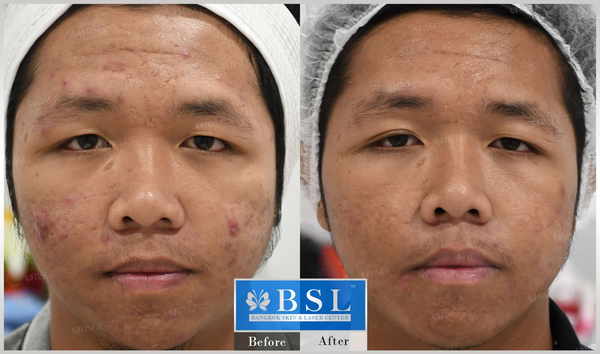 before-after-results-acne-150