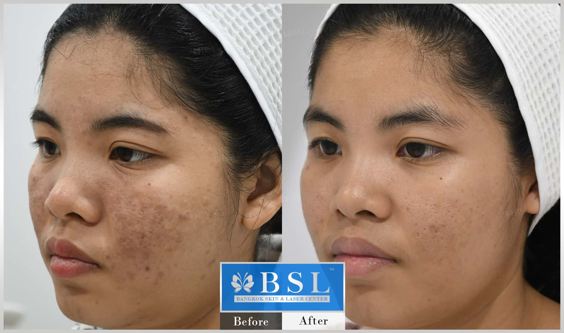 before-after-results-acne-154