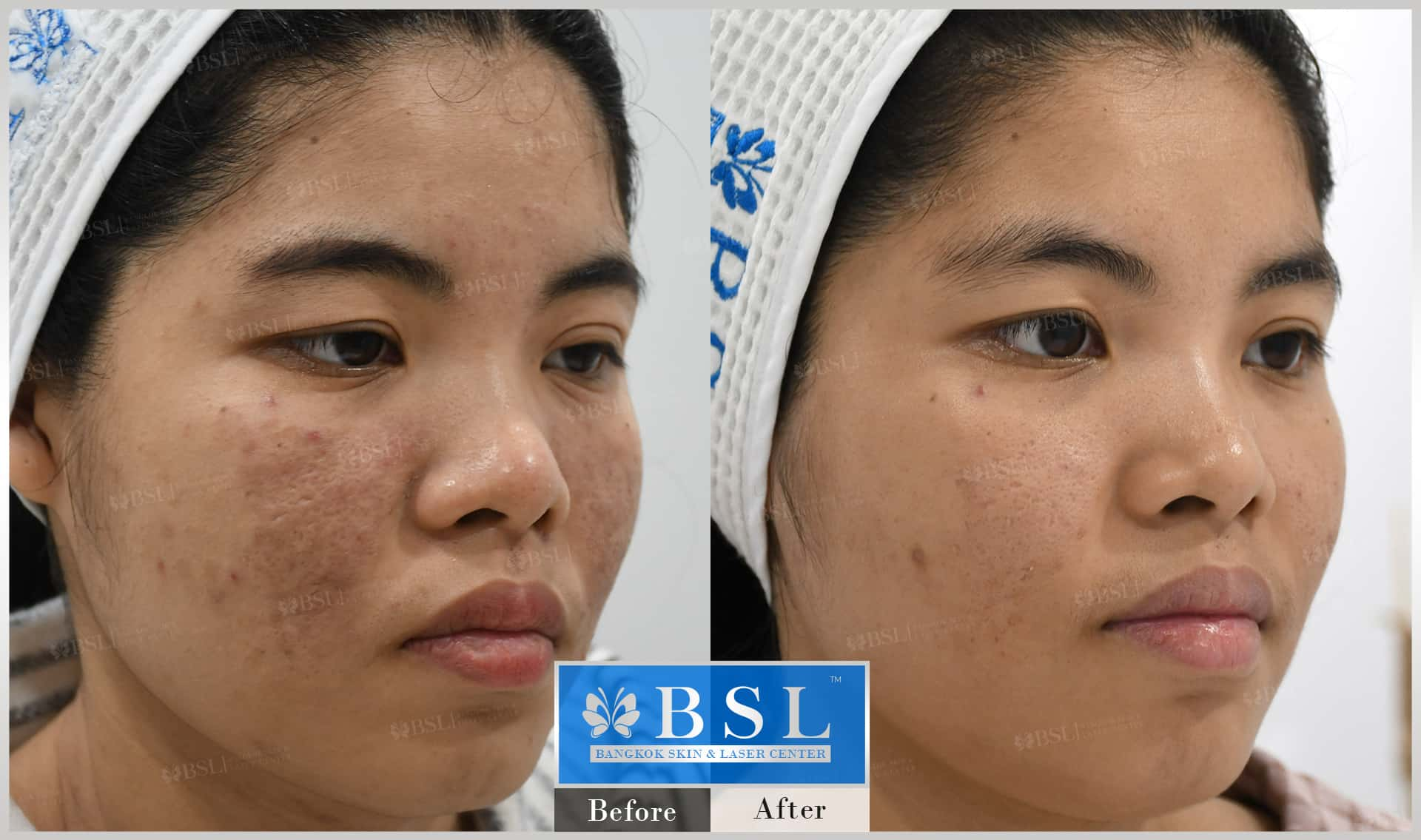 before-after-results-acne-155