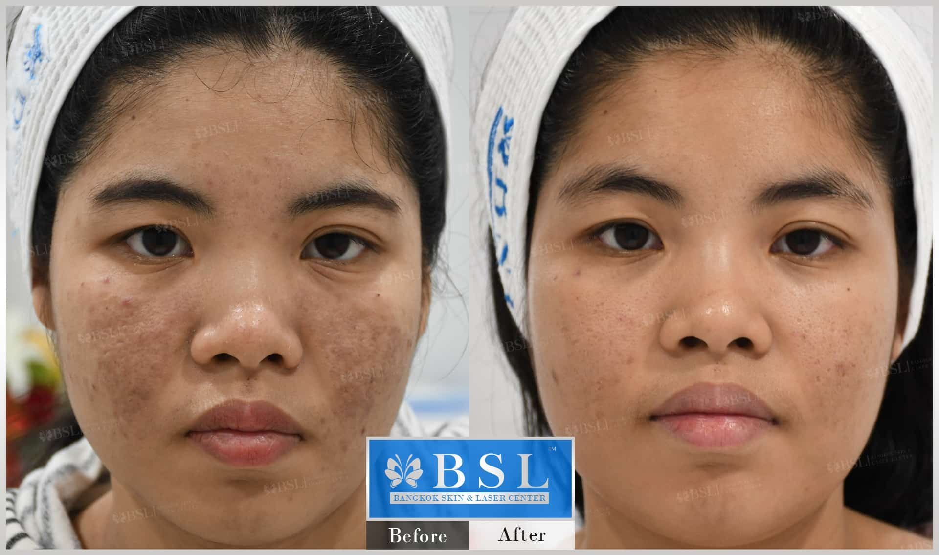 before-after-results-acne-156