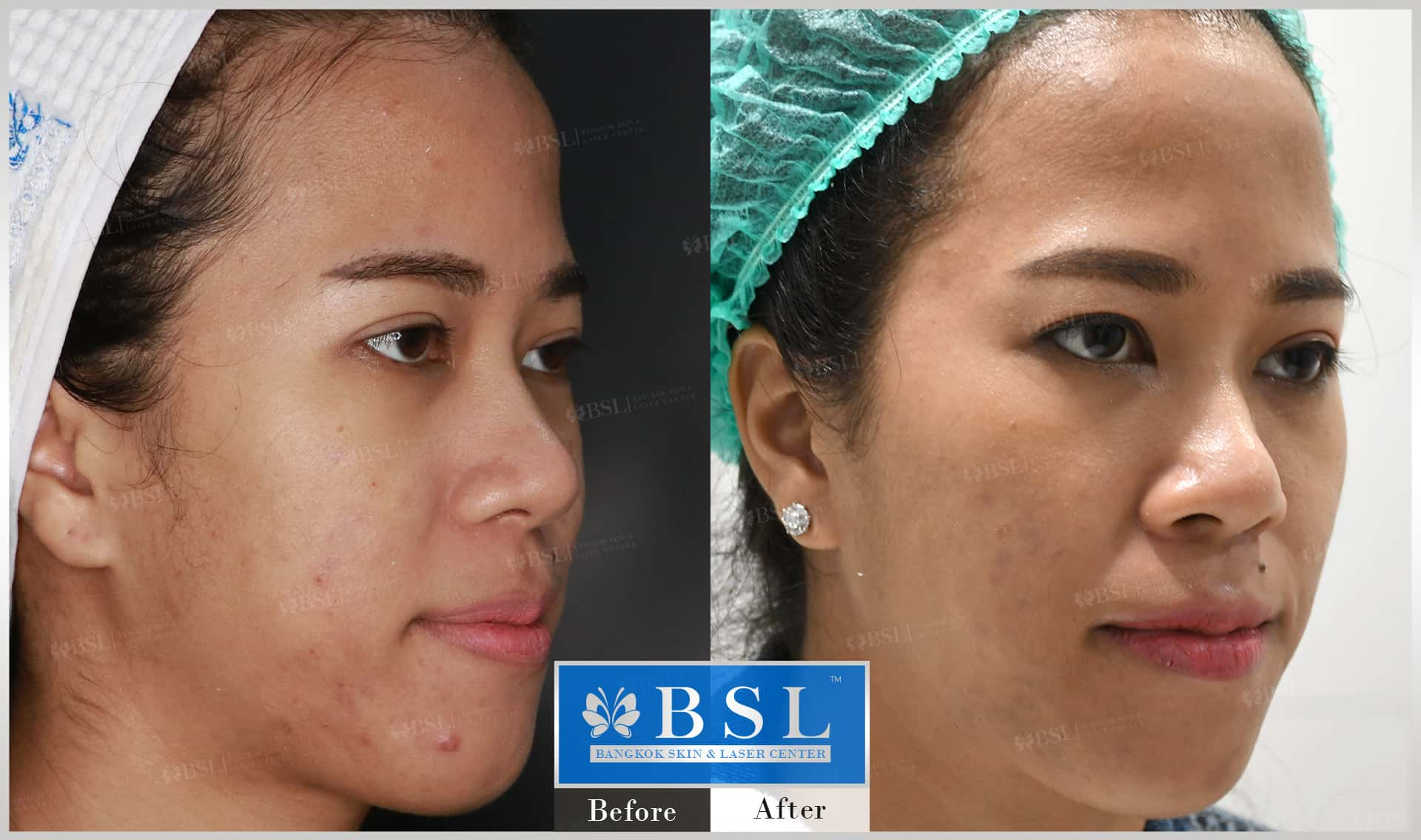before-after-results-acne-157