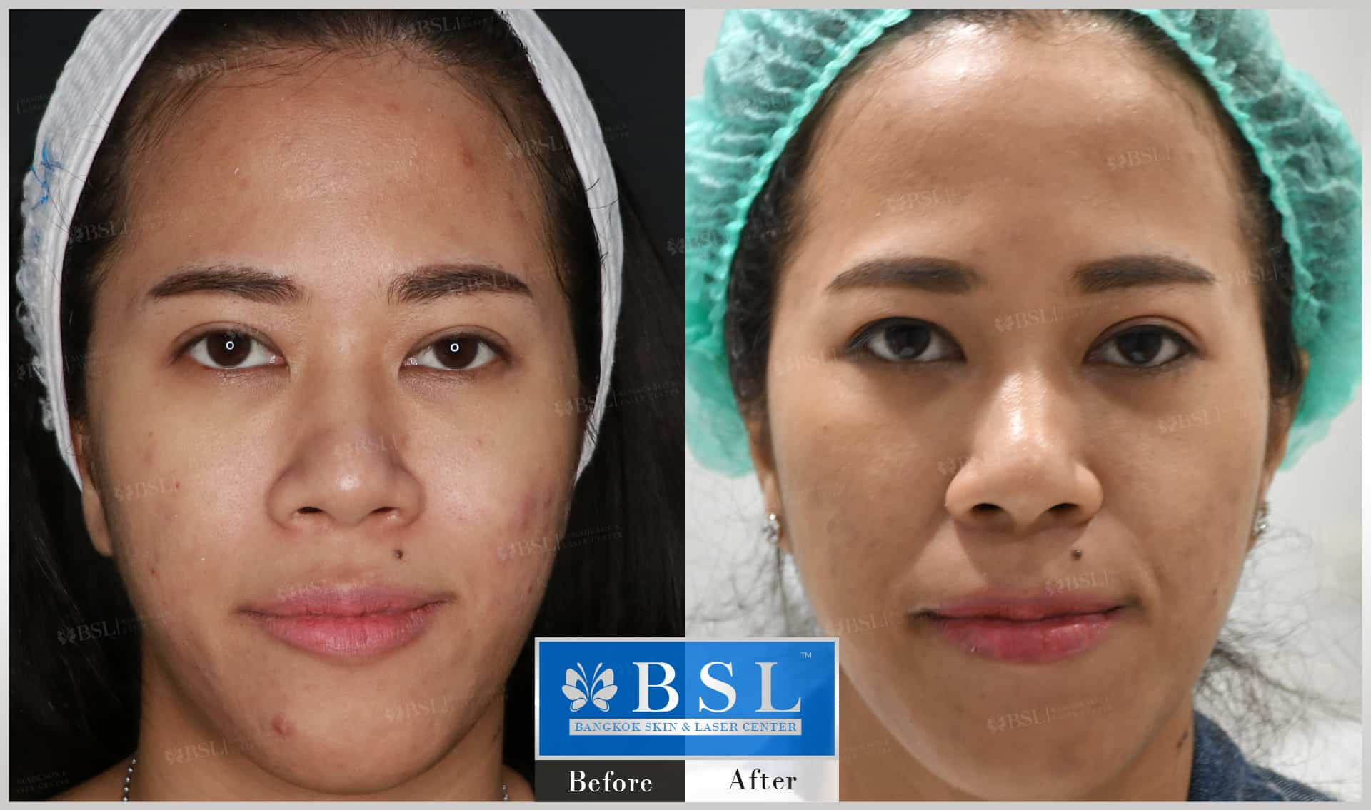 before-after-results-acne-158