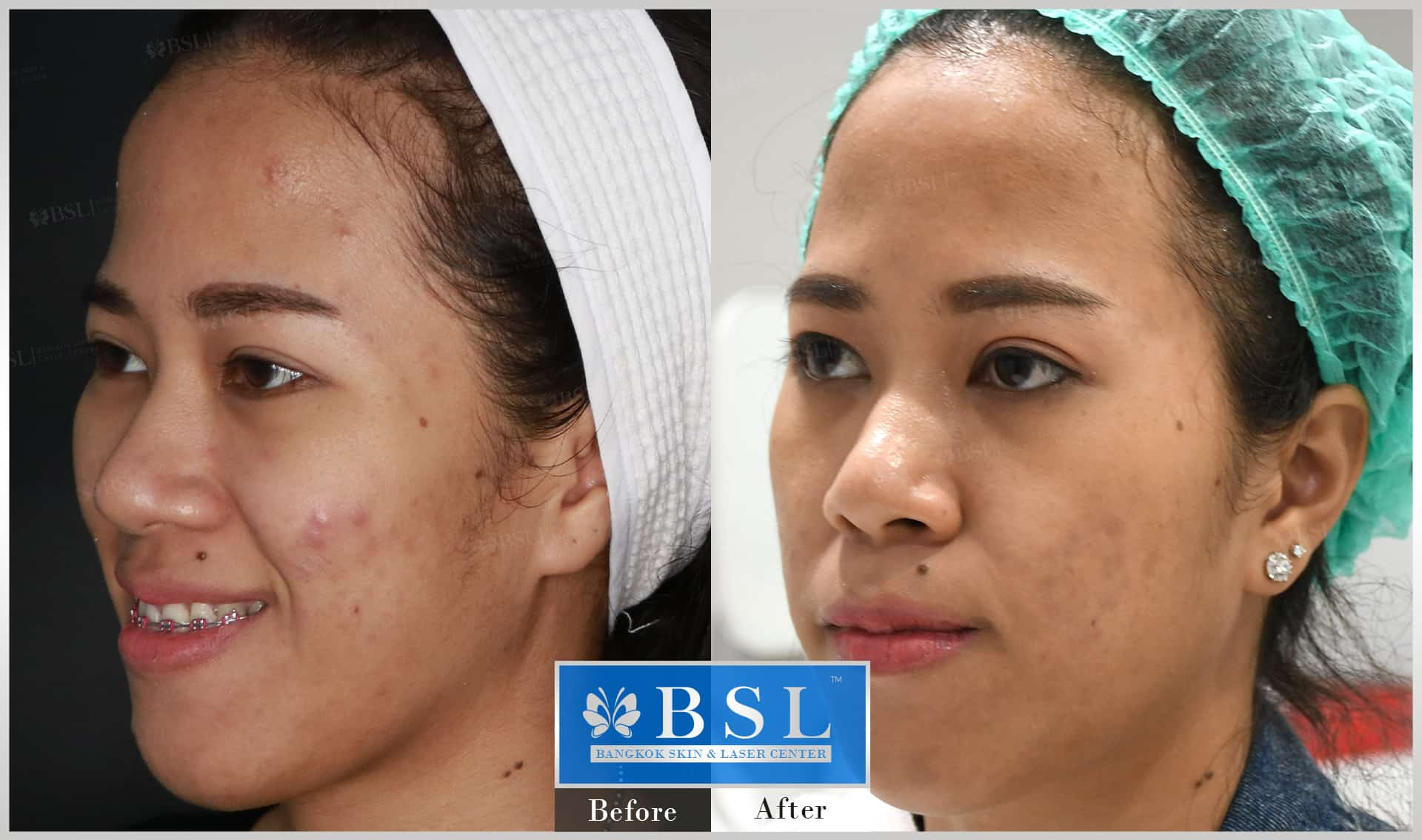 before-after-results-acne-159