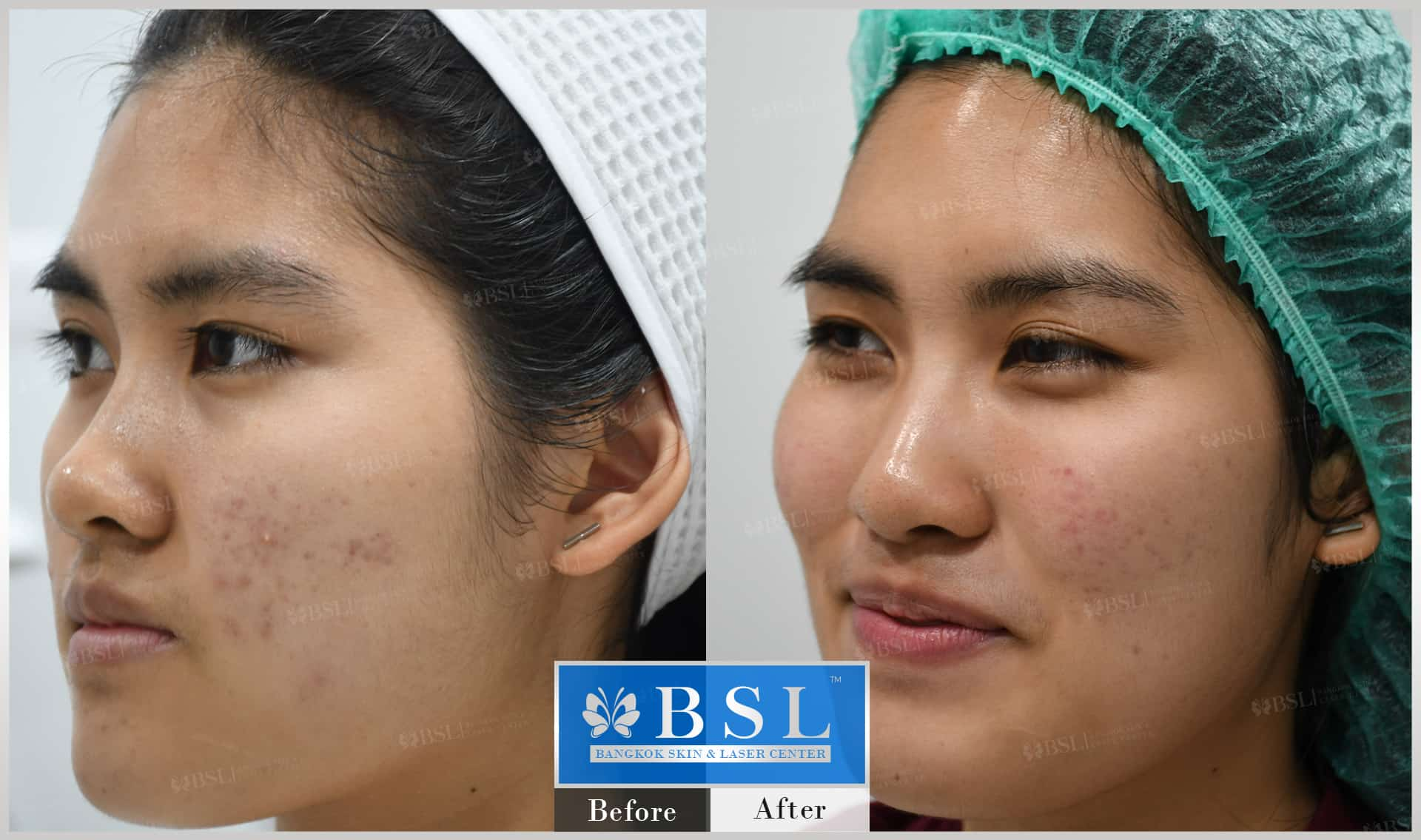 before-after-results-acne-160