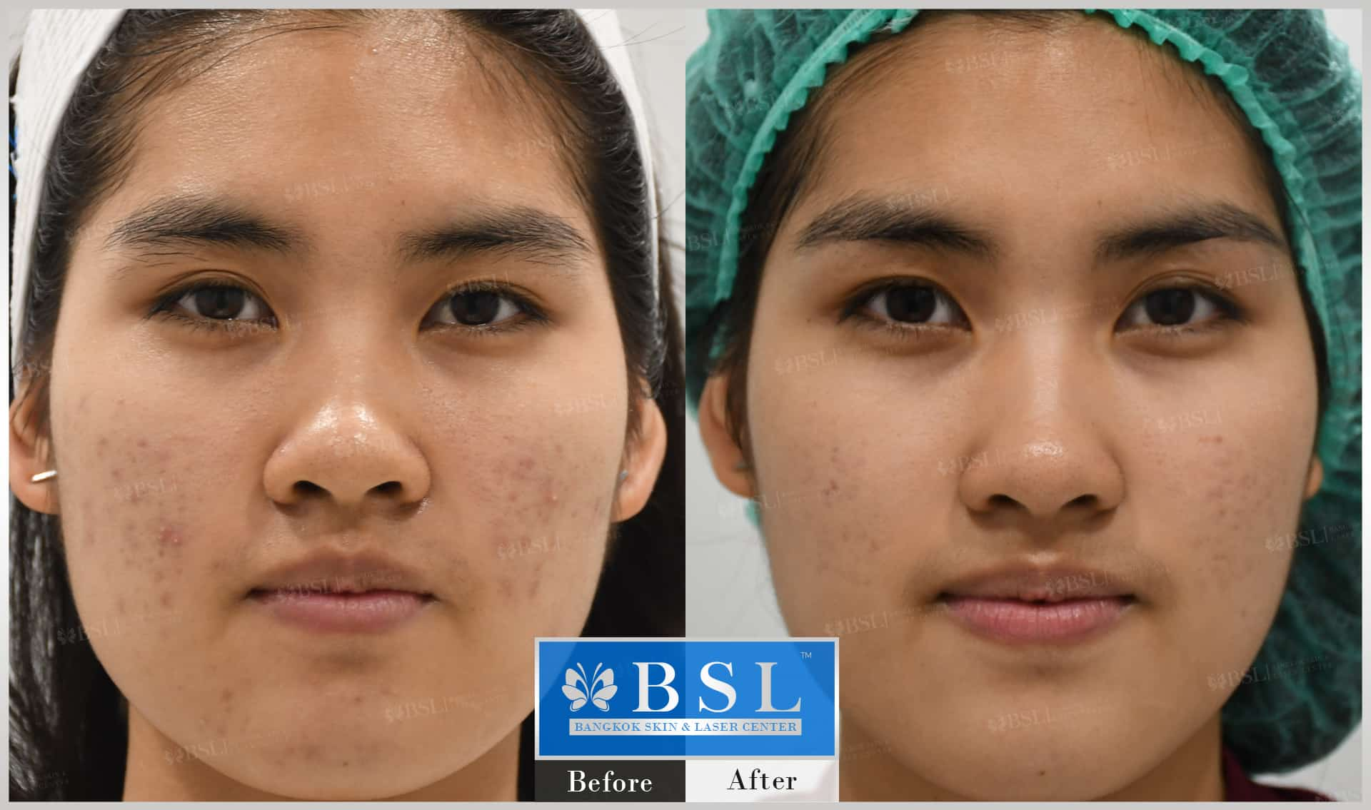 before-after-results-acne-161