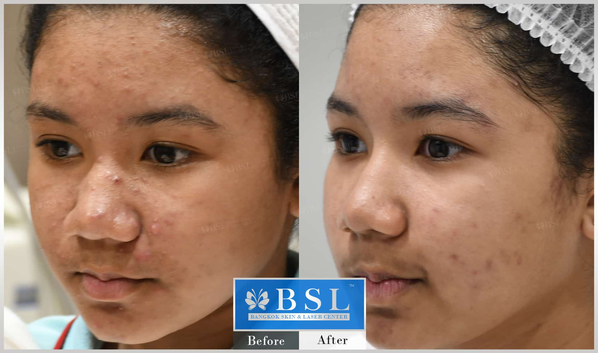before-after-results-acne-162