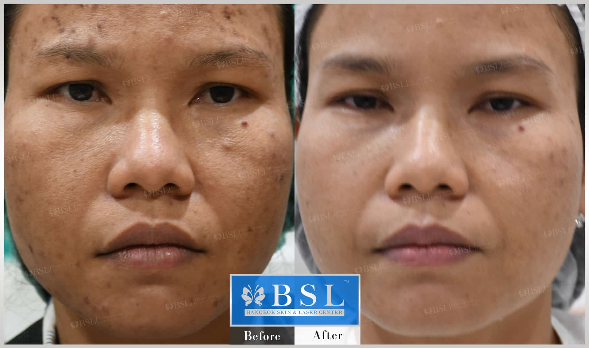 before-after-results-acne-167