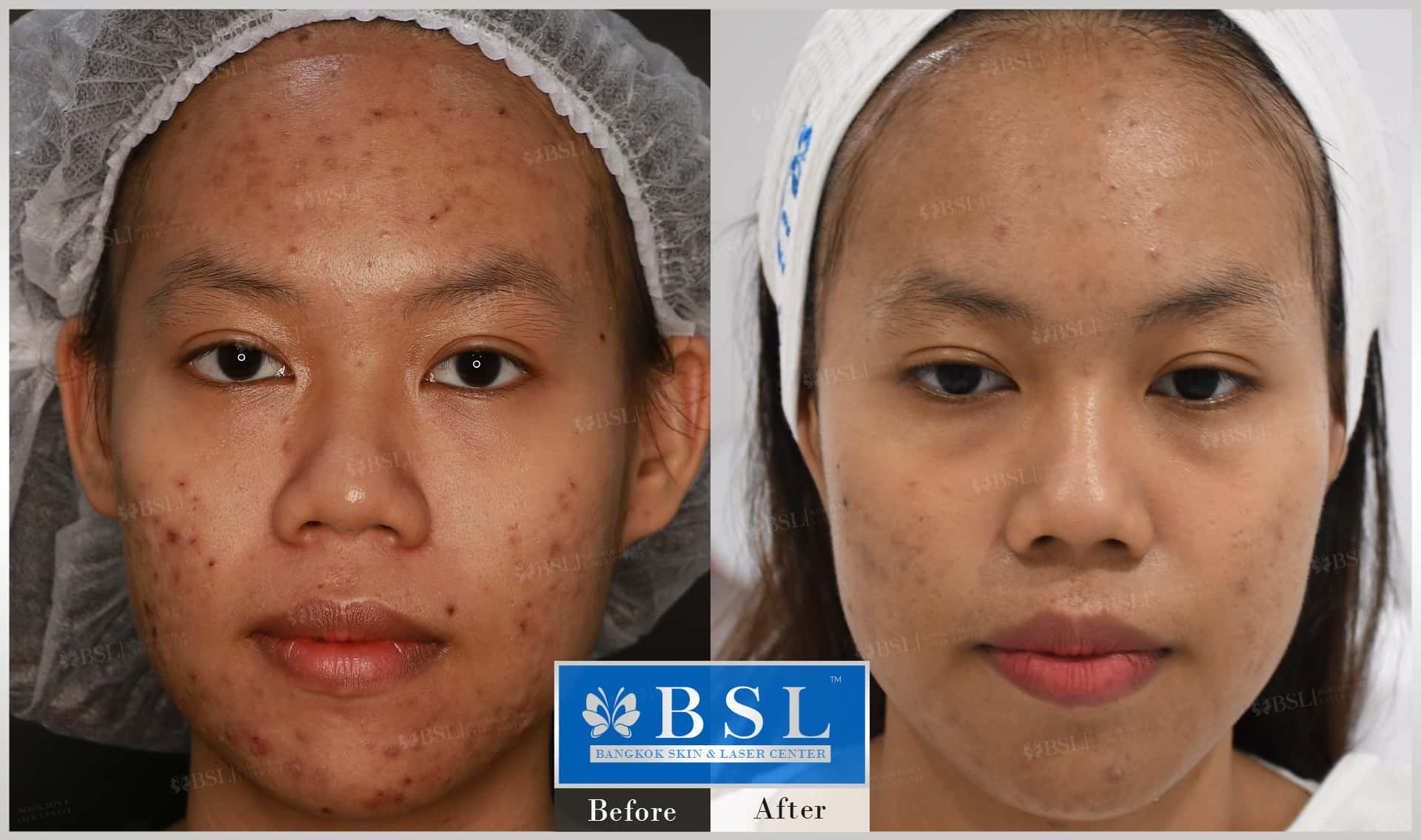 before-after-results-acne-170