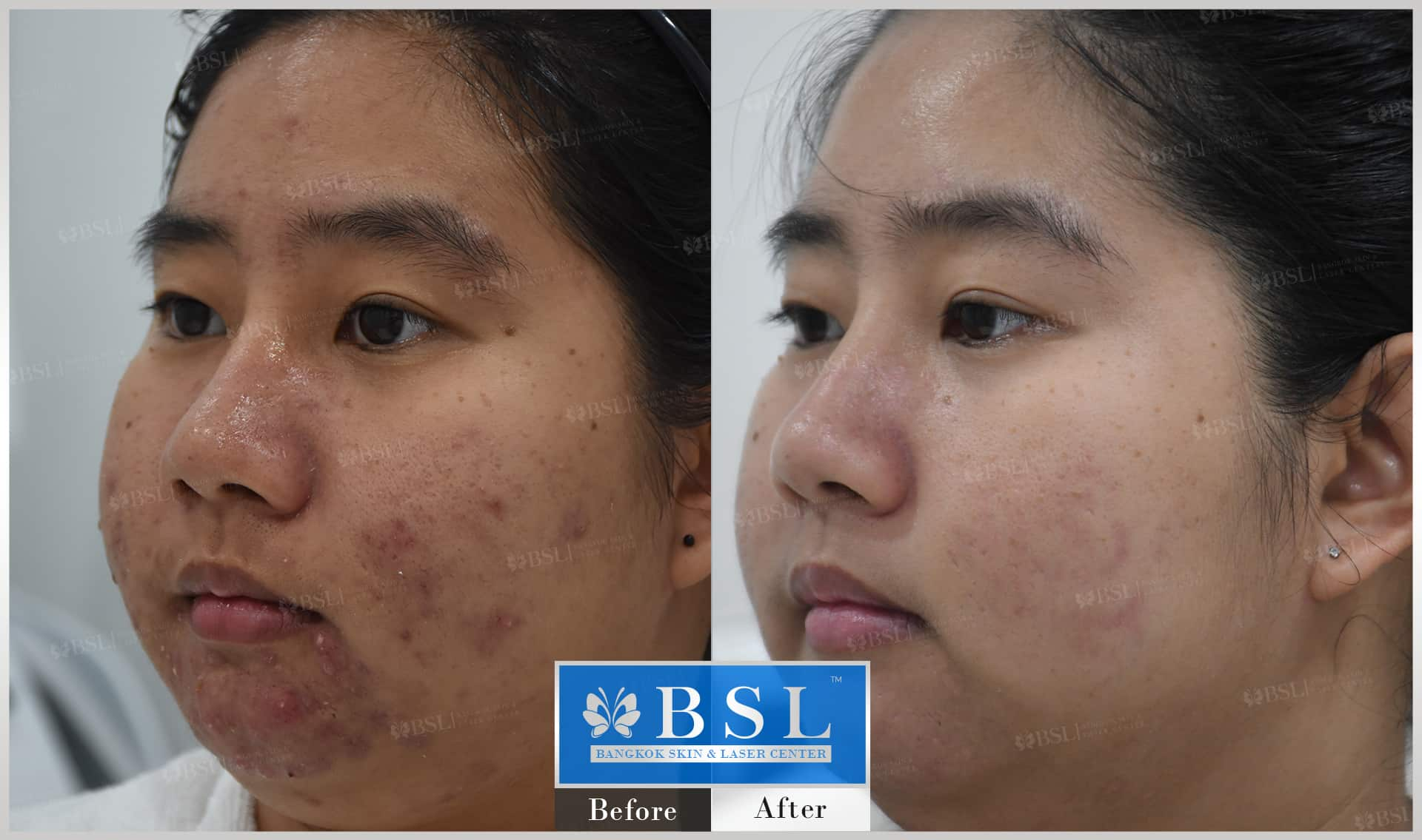 before-after-results-acne-171