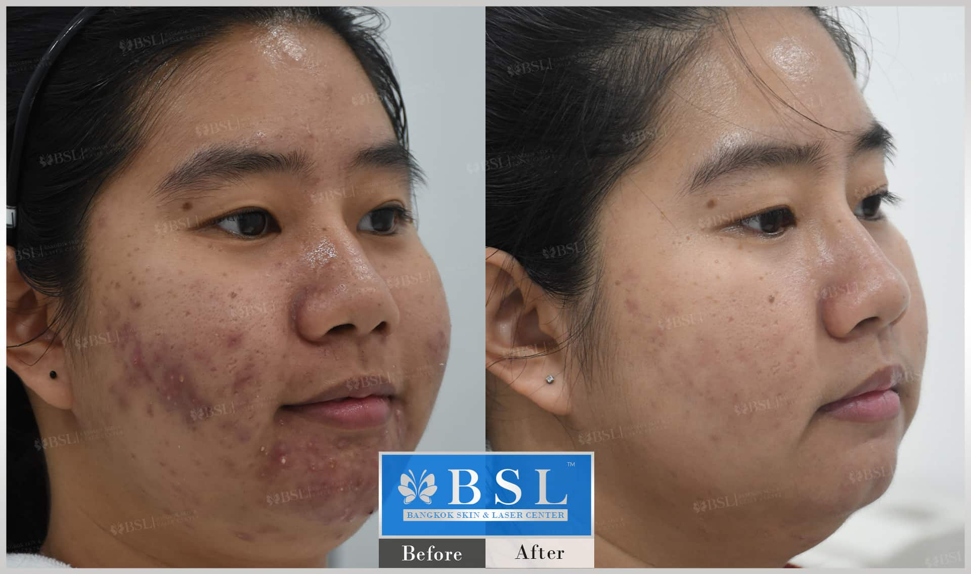 before-after-results-acne-172