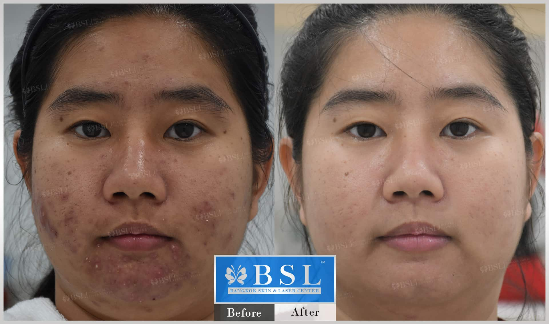 before-after-results-acne-173
