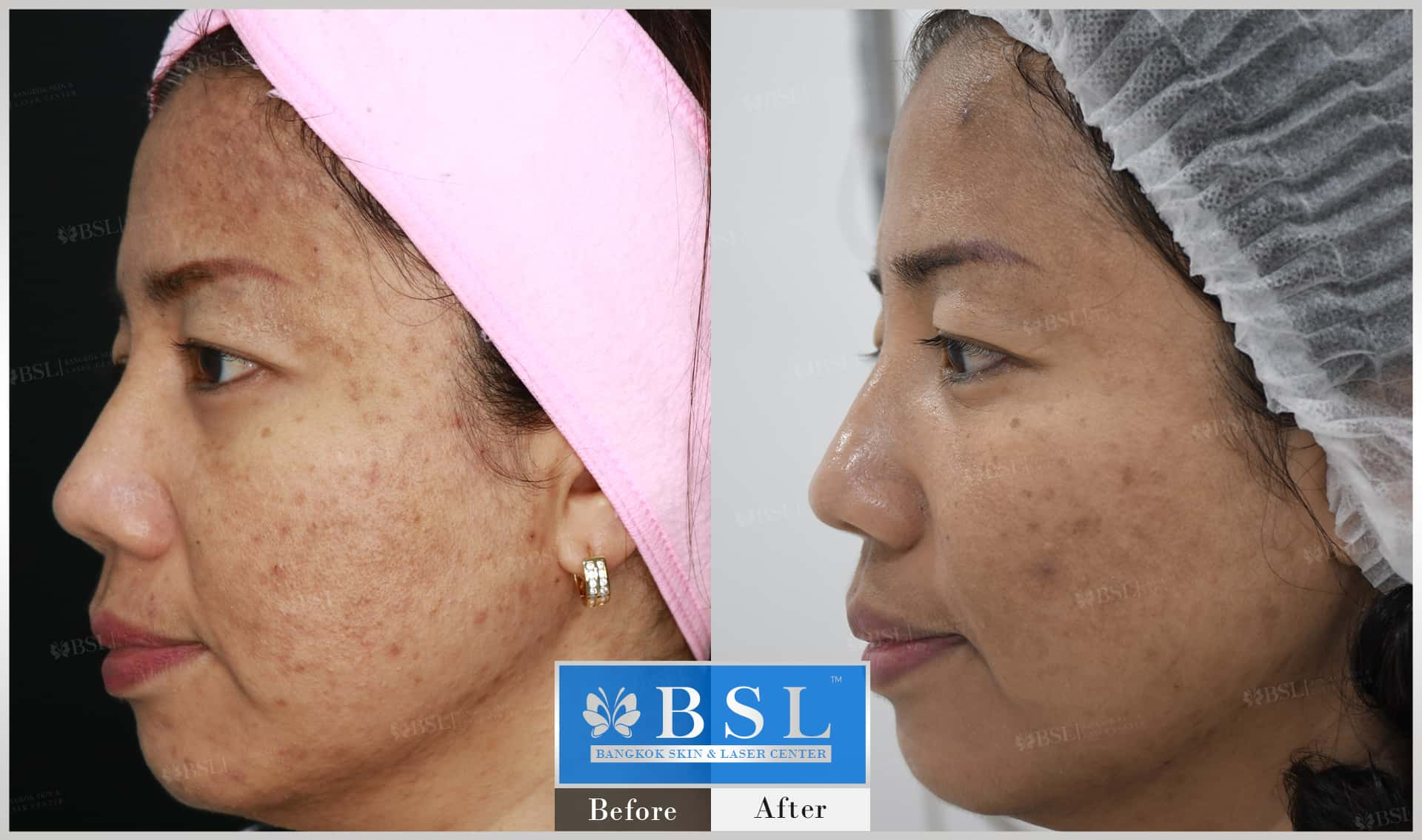 before-after-results-acne-176