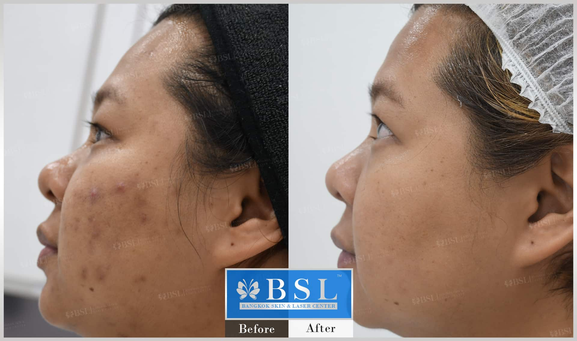 before-after-results-acne-177