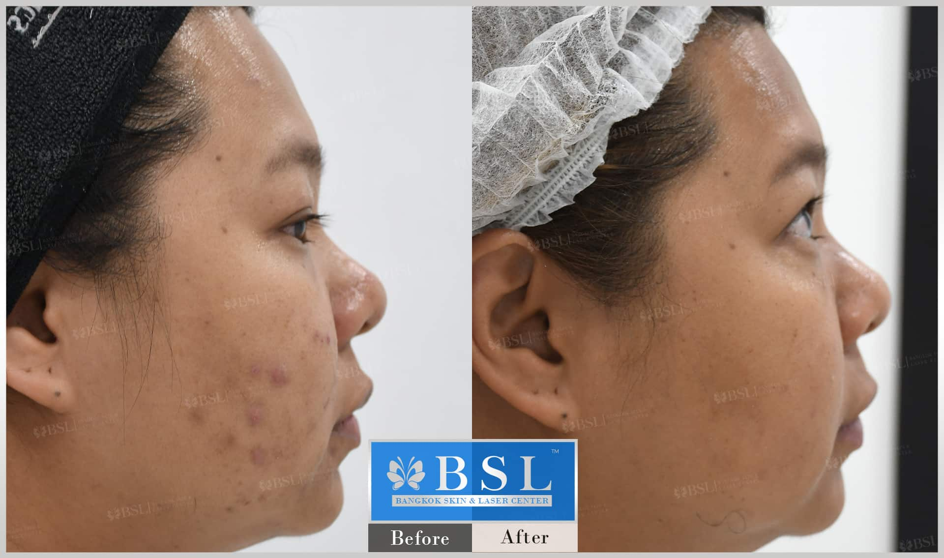 before-after-results-acne-178