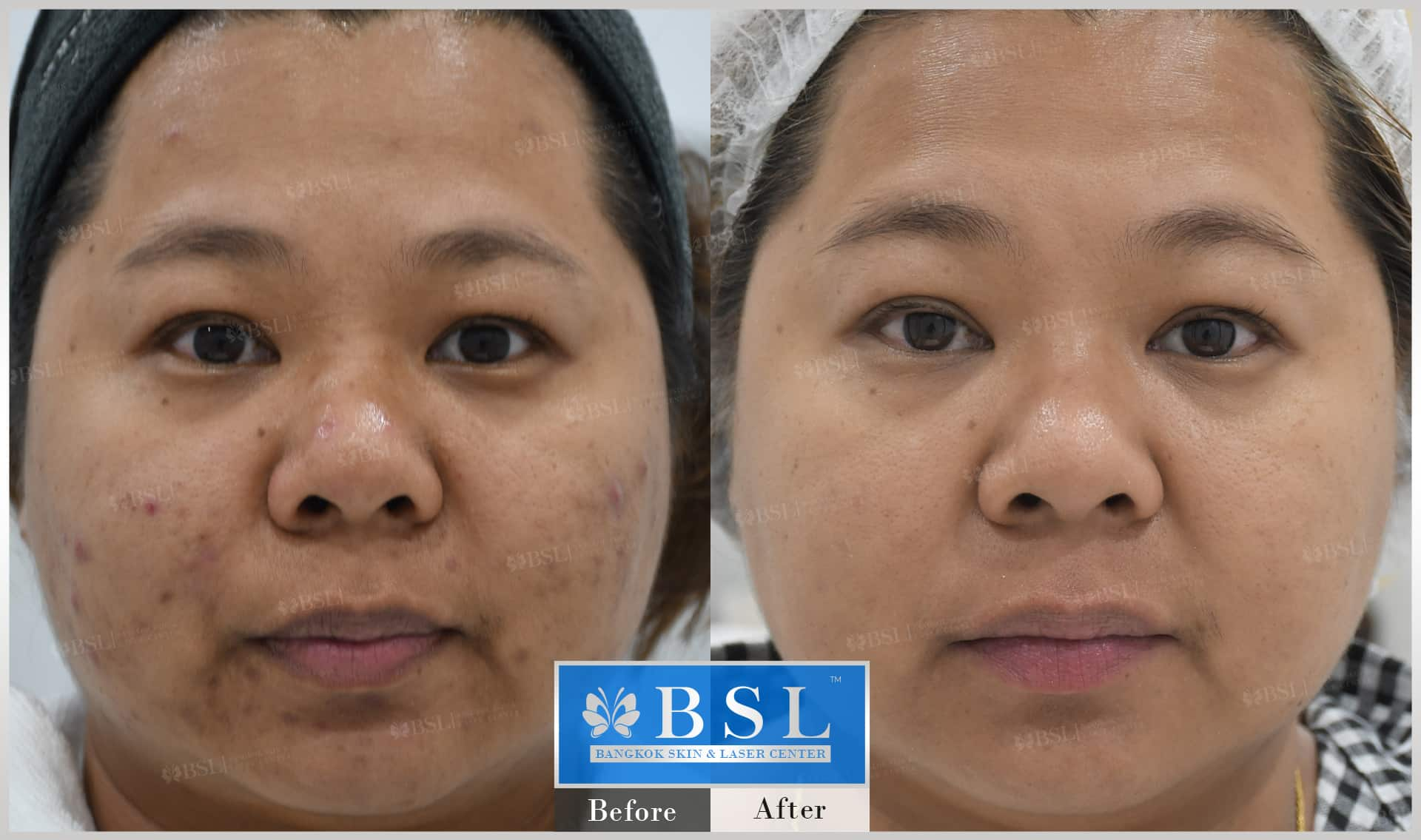 before-after-results-acne-179