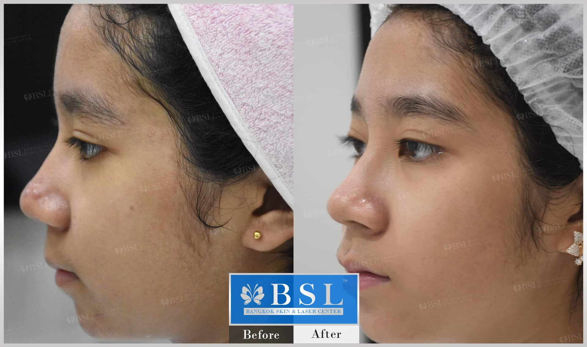 before-after-results-acne-180