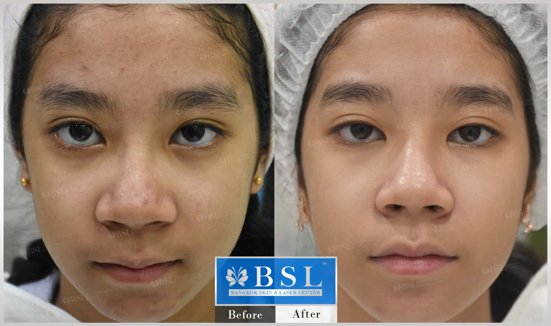 before-after-results-acne-182
