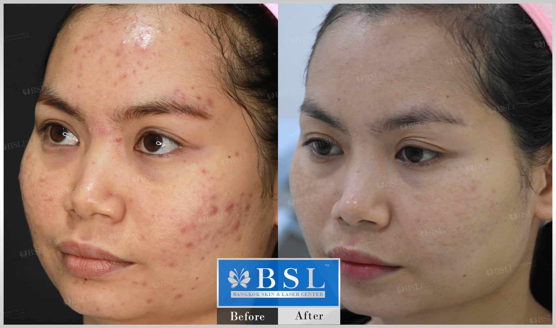 before-after-results-acne-183