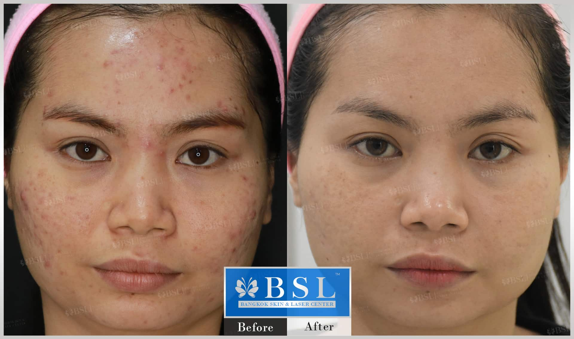 before-after-results-acne-185