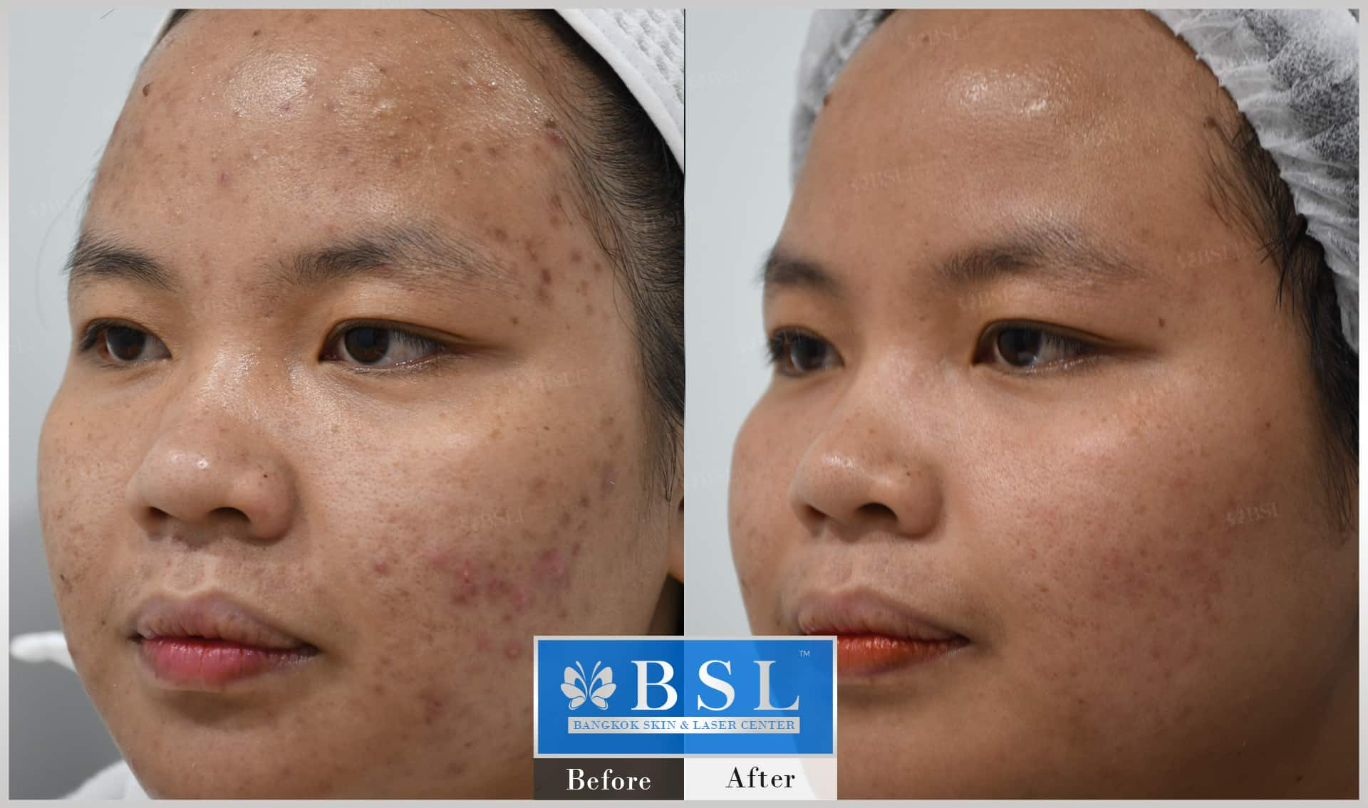 before-after-results-acne-186