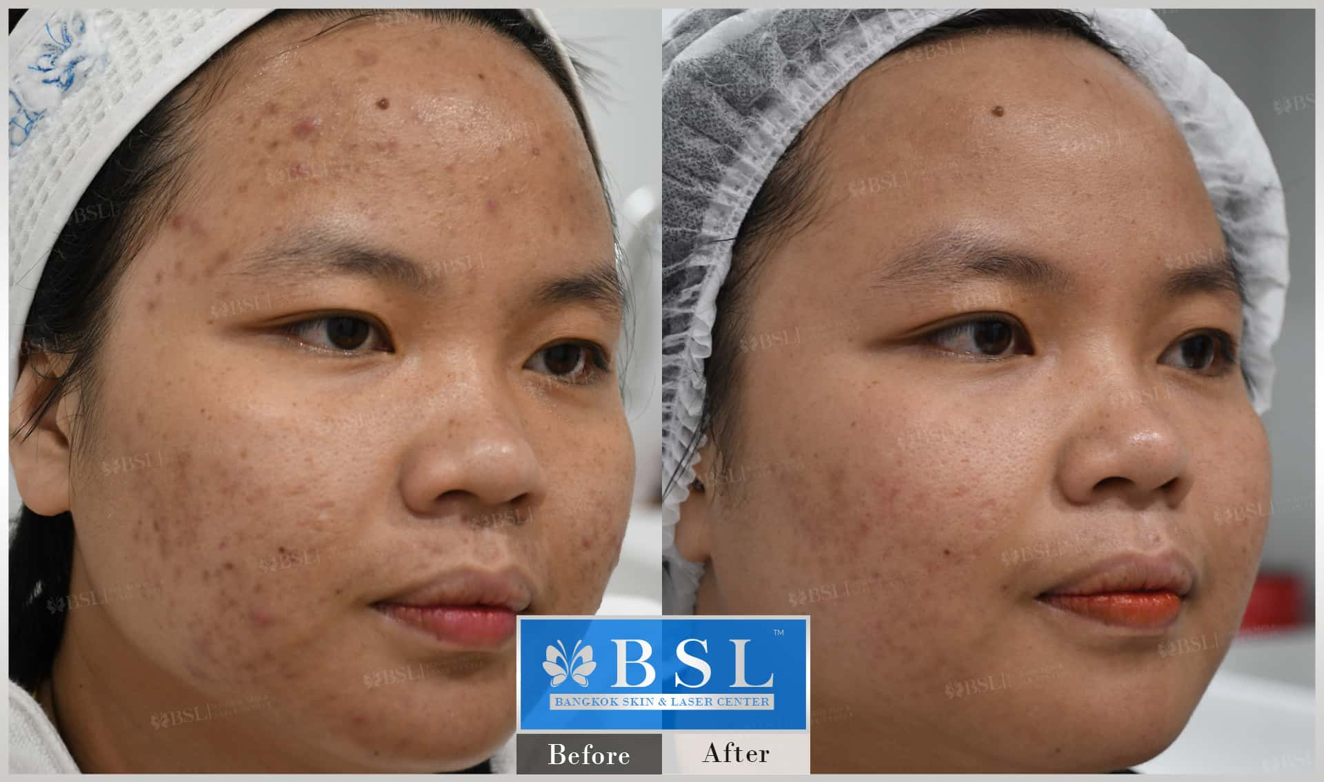 before-after-results-acne-187