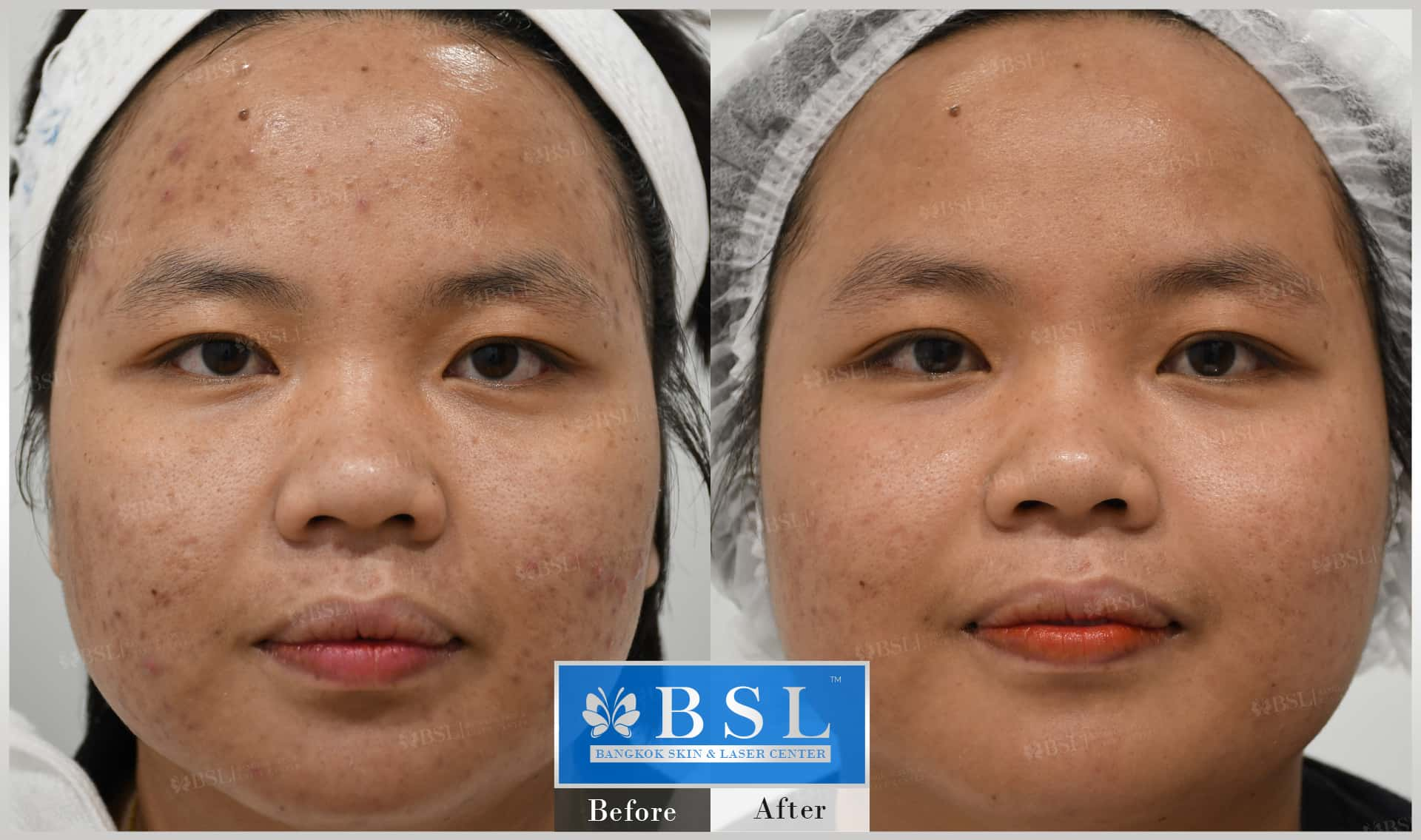 before-after-results-acne-188