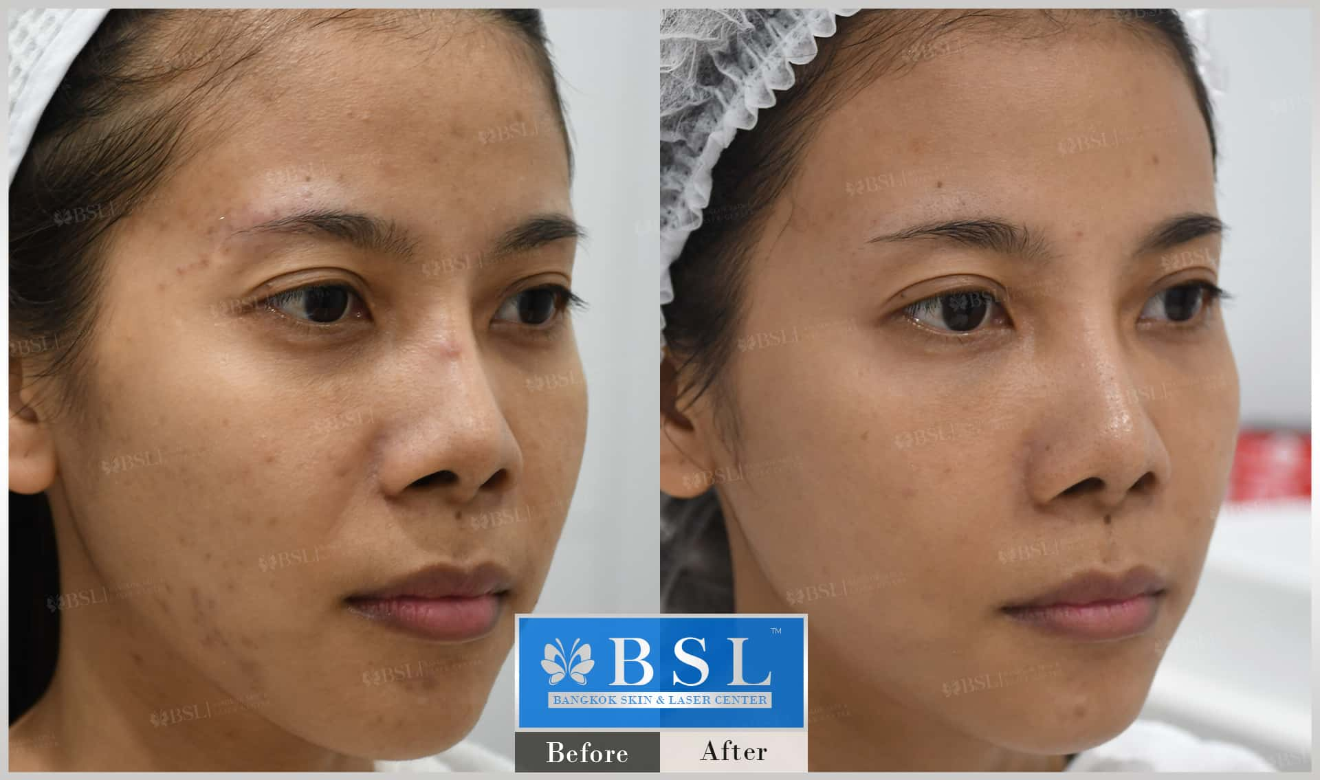 before-after-results-acne-190