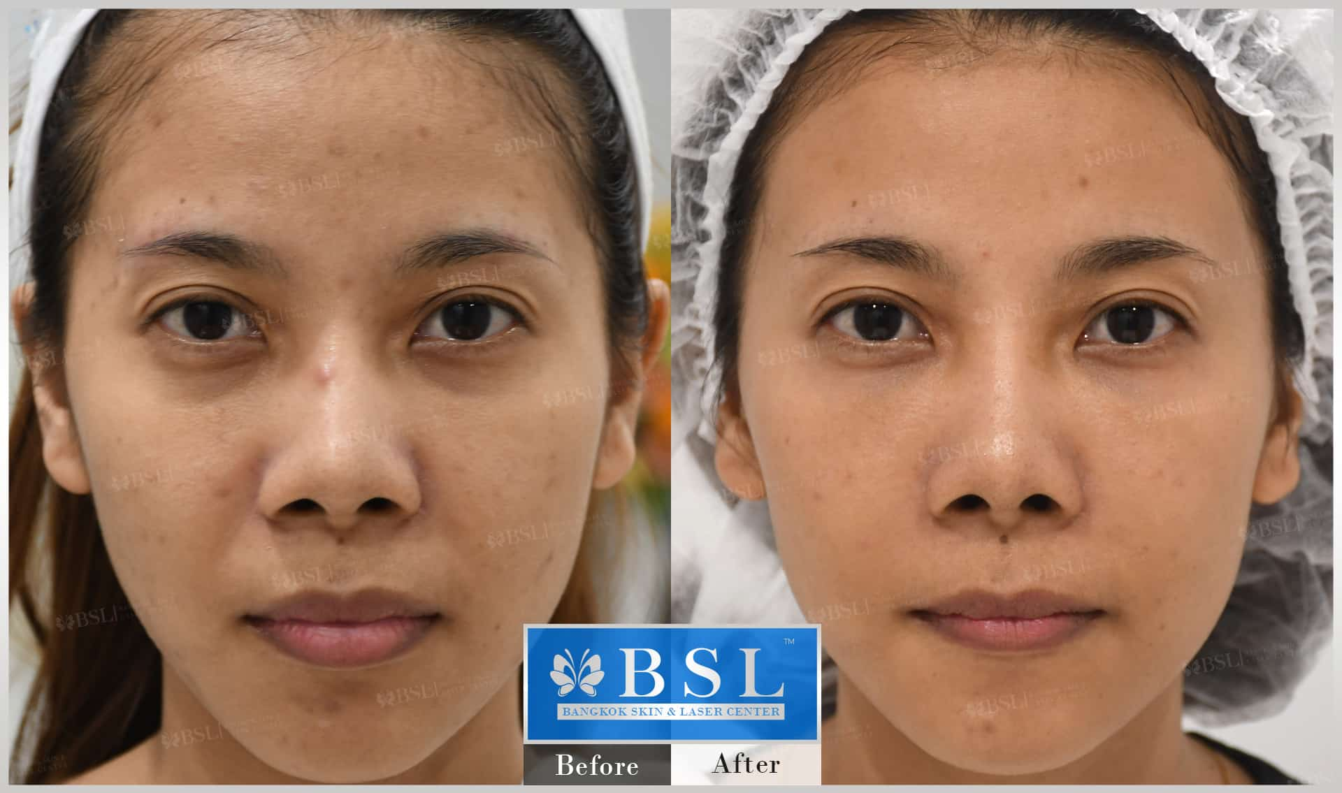 before-after-results-acne-191