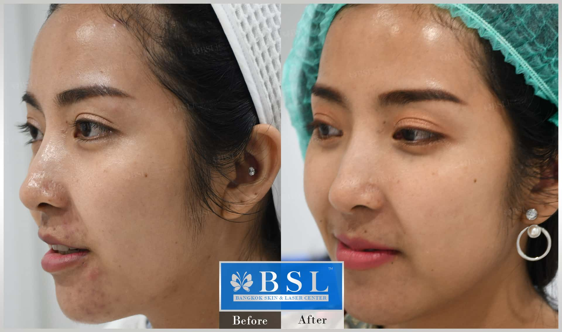 before-after-results-acne-192