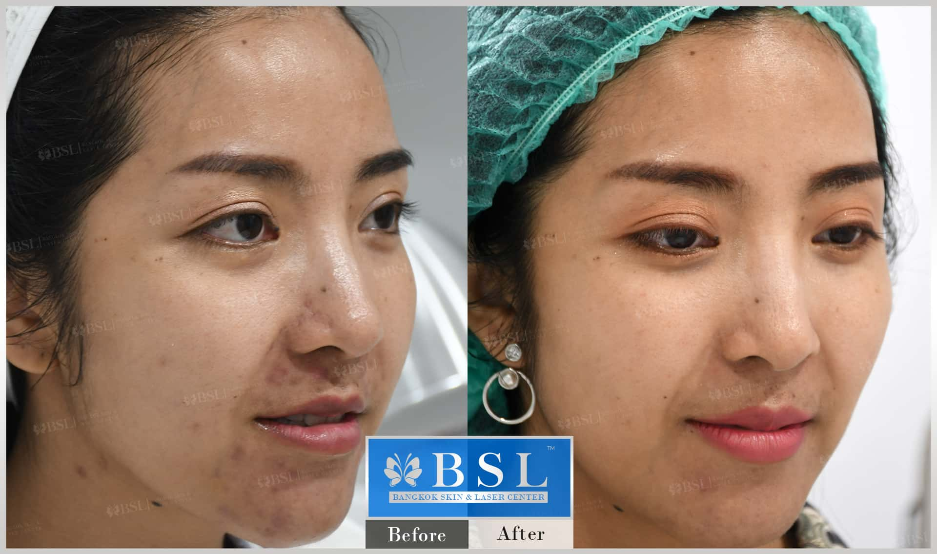 before-after-results-acne-193