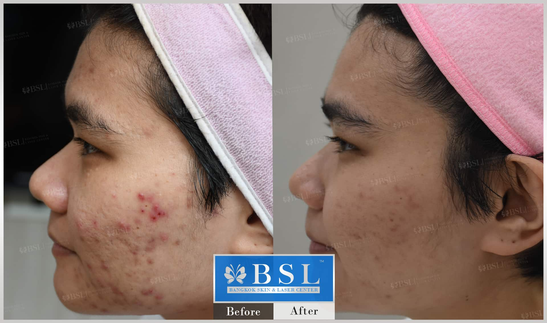 before-after-results-acne-195