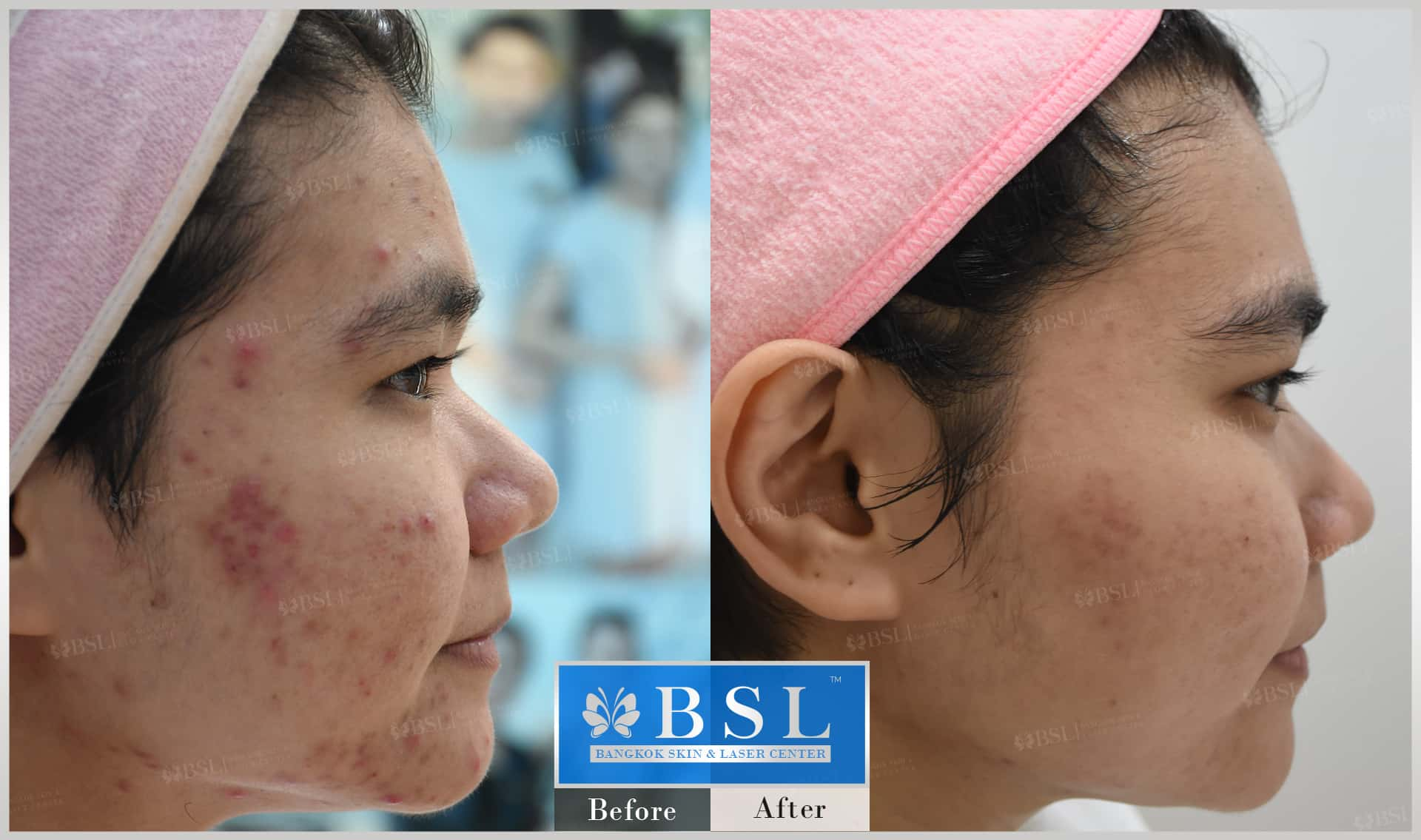before-after-results-acne-196
